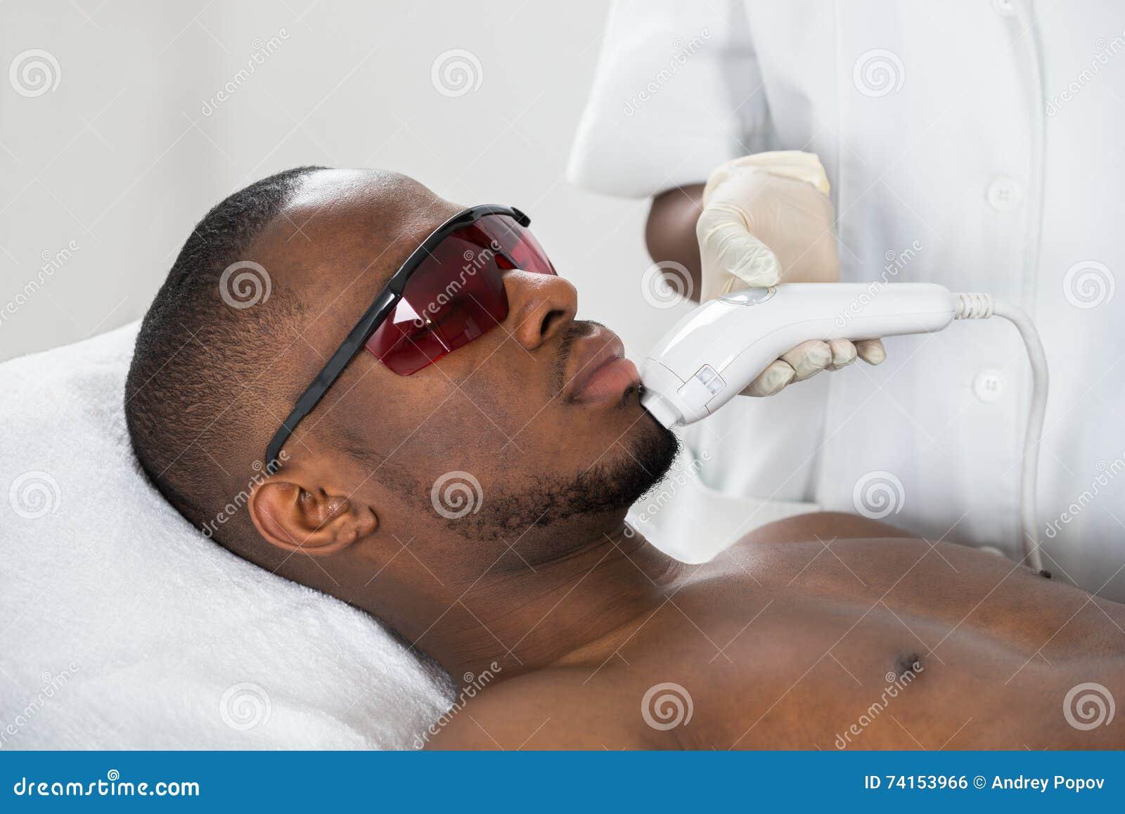 De Behandeling van therapeutgiving laser epilation op de Jonge Mens