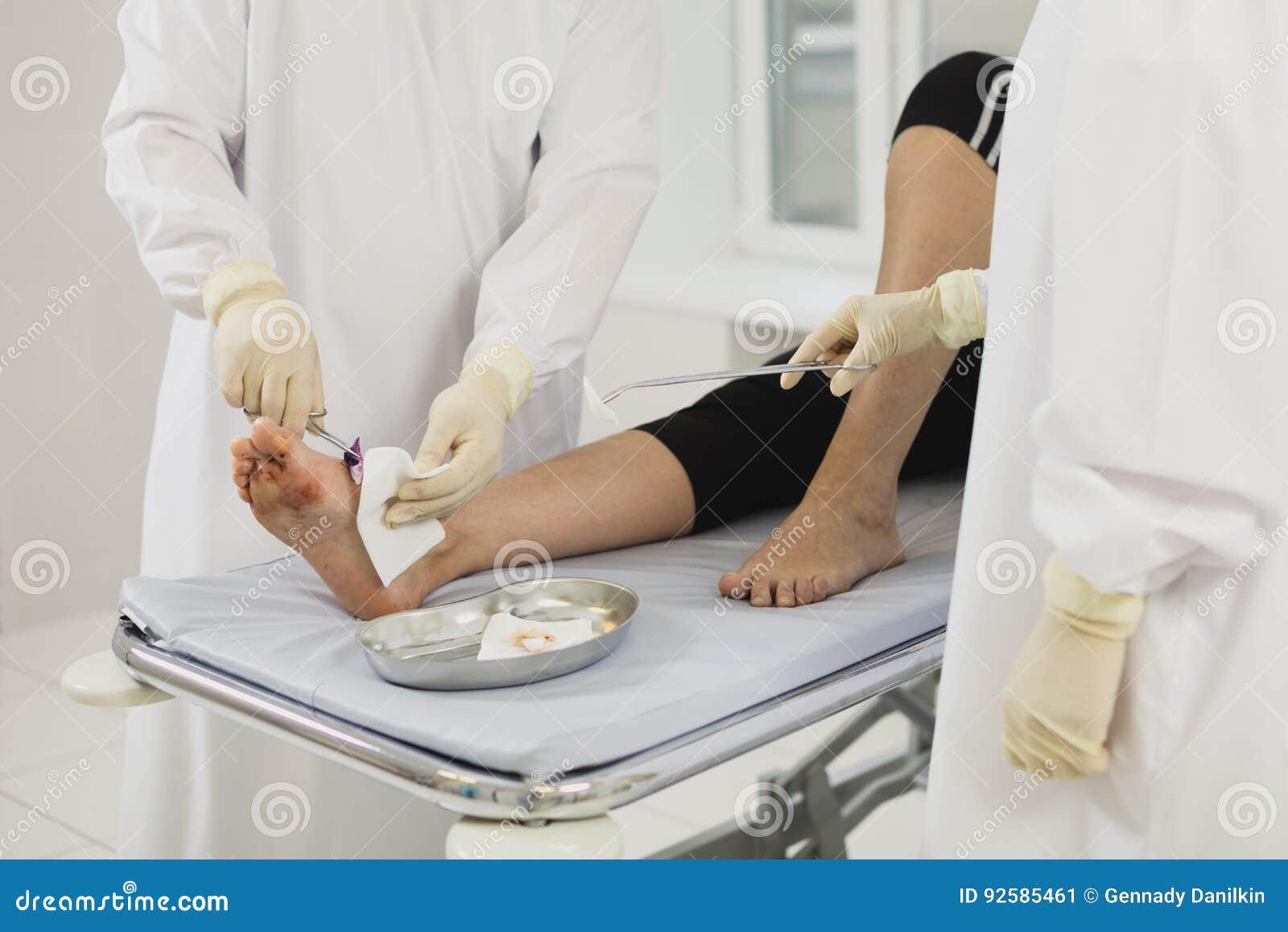 De desinfectie van medisch litteken na chirurgie, verliest omhoog van Medische Verrichting