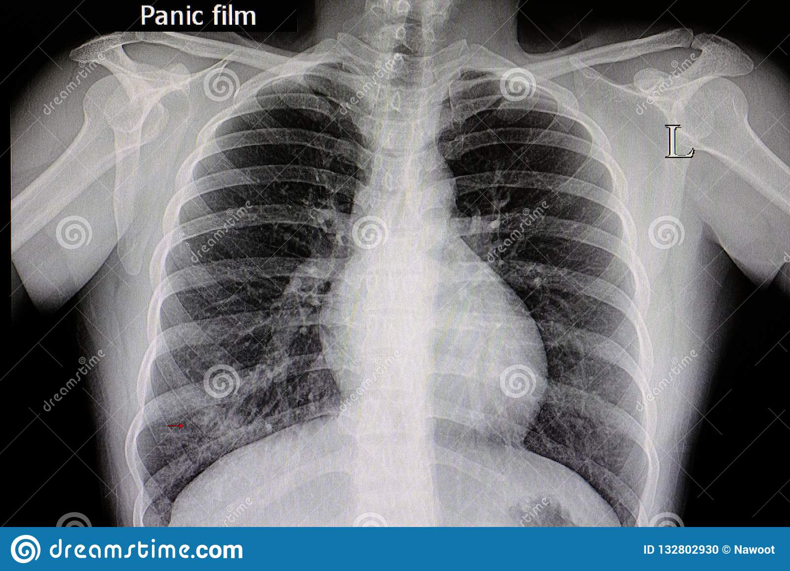 De Film van de longontstekingsborst
