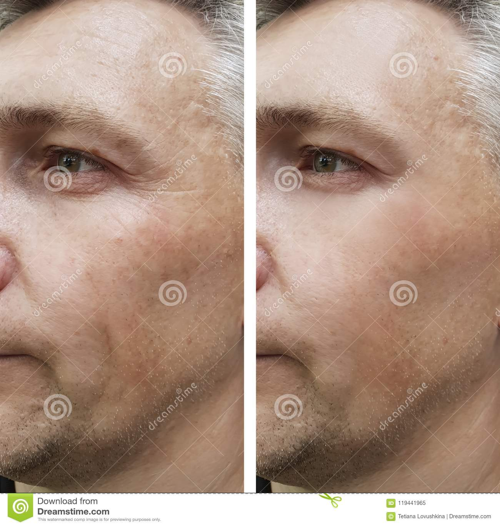 De gezichtsmens rimpelt vóór en na