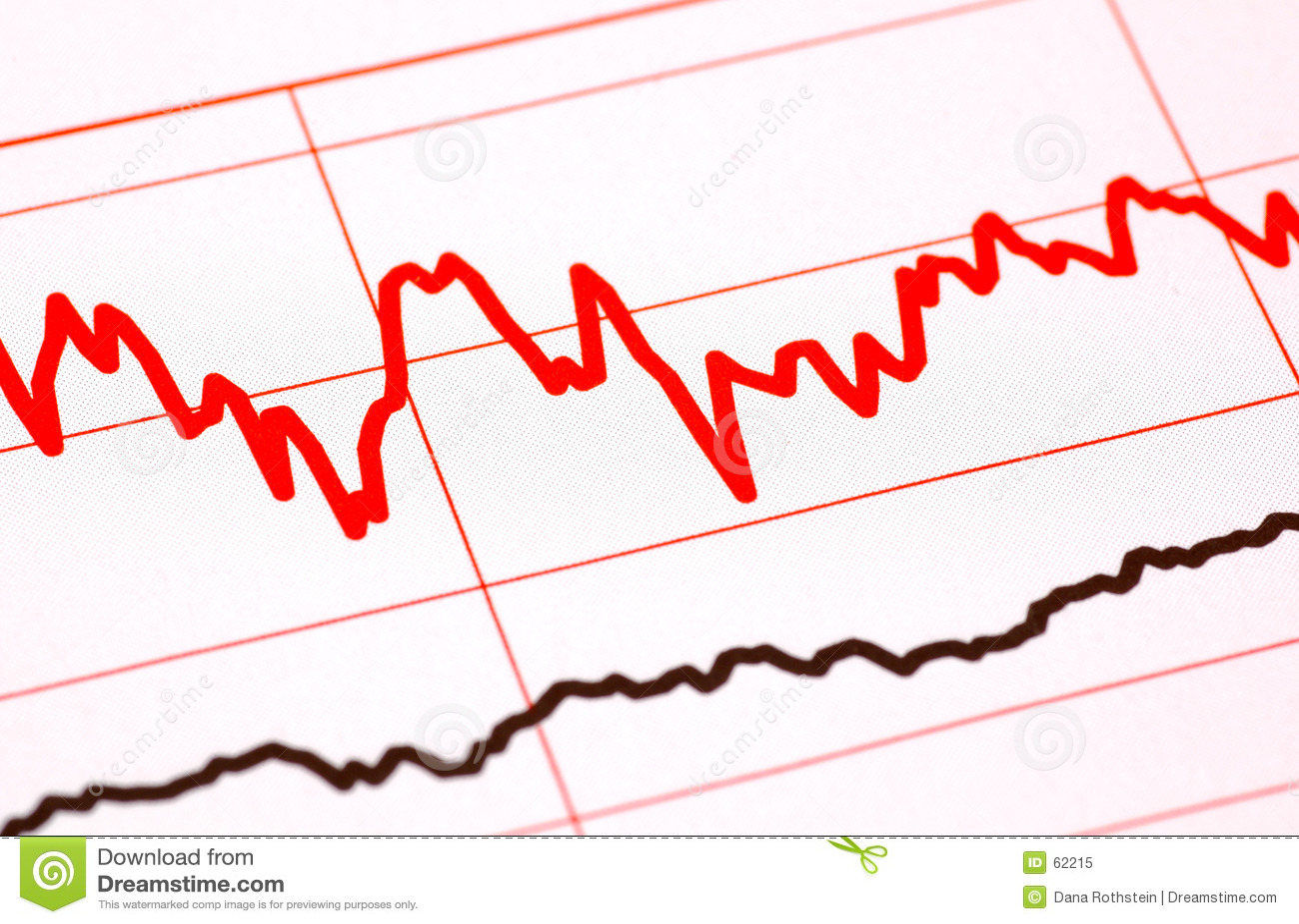De Grafiek van de Stijl van het electrocardiogram
