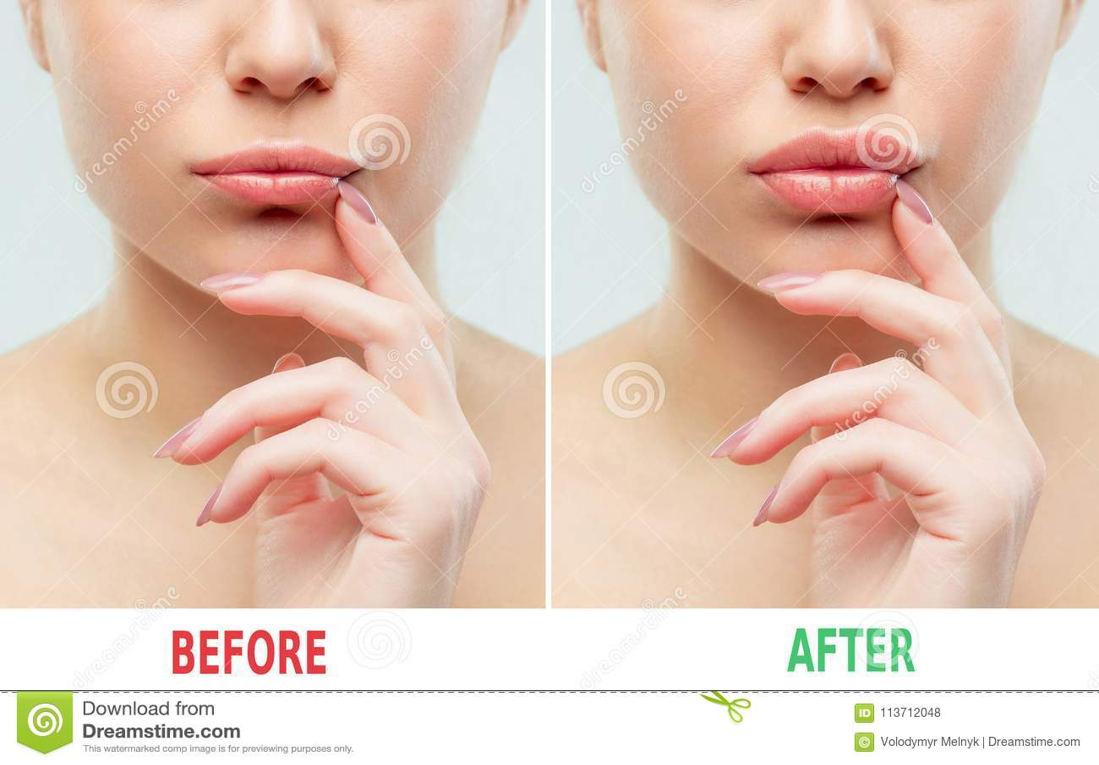Before and after de injecties van de lippenvuller Schoonheidsplastiek Mooie perfecte lippen met natuurlijke make-up
