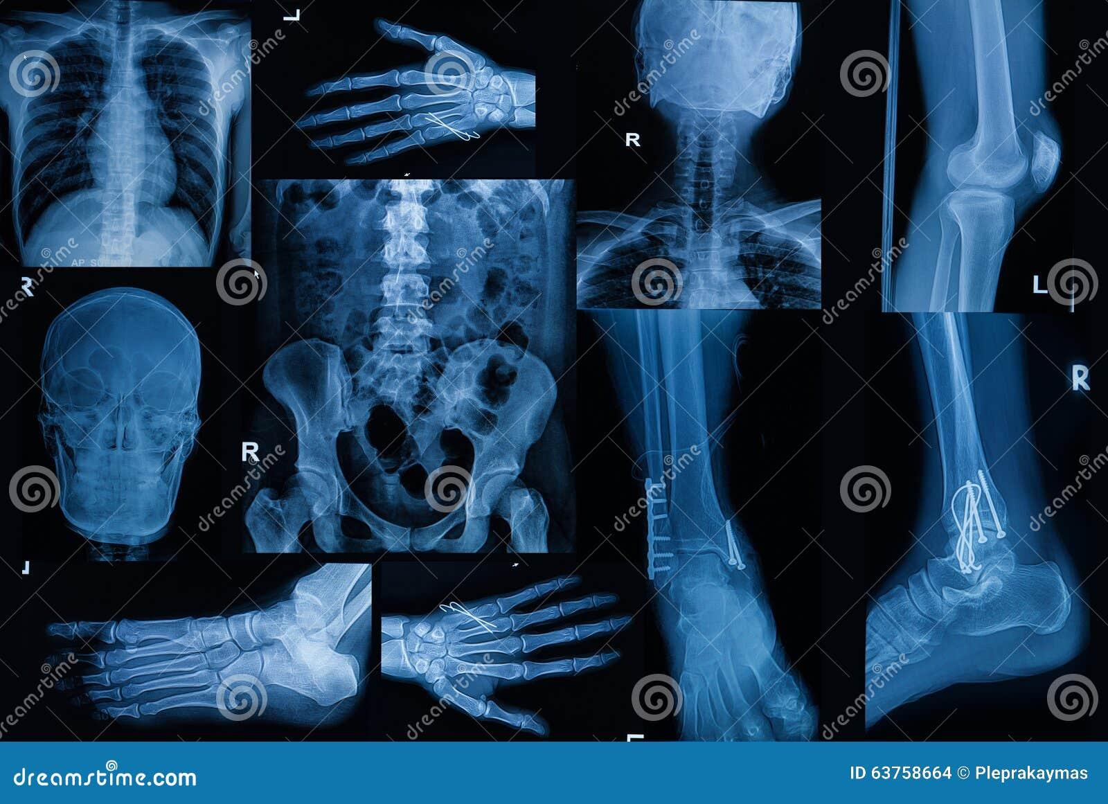 De inzameling van Röntgenstraal, Veelvoudig deel van volwassene toont breuk bon