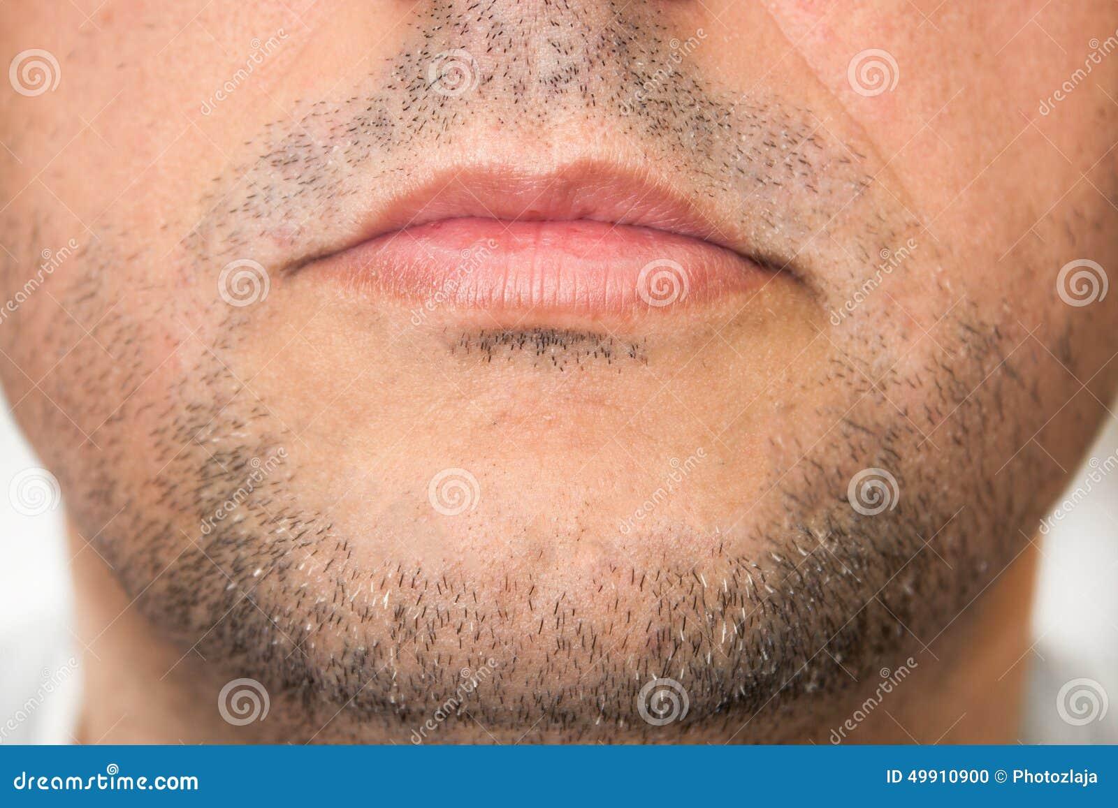 Bulto por debajo de la mandibula