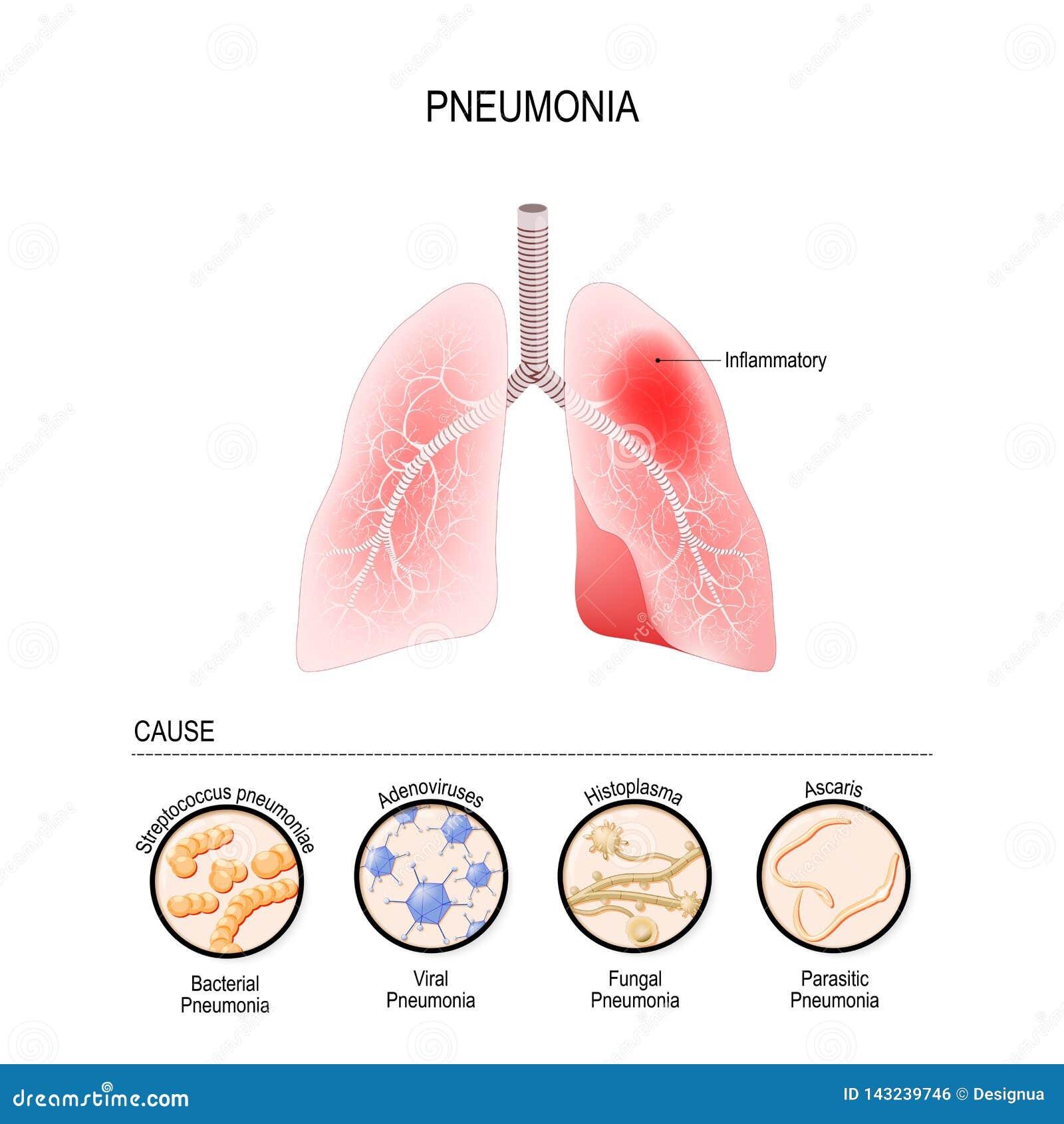 De longontsteking wordt veroorzaakt door besmetting met virussen, bacteriën, paddestoelen en micro-organisme
