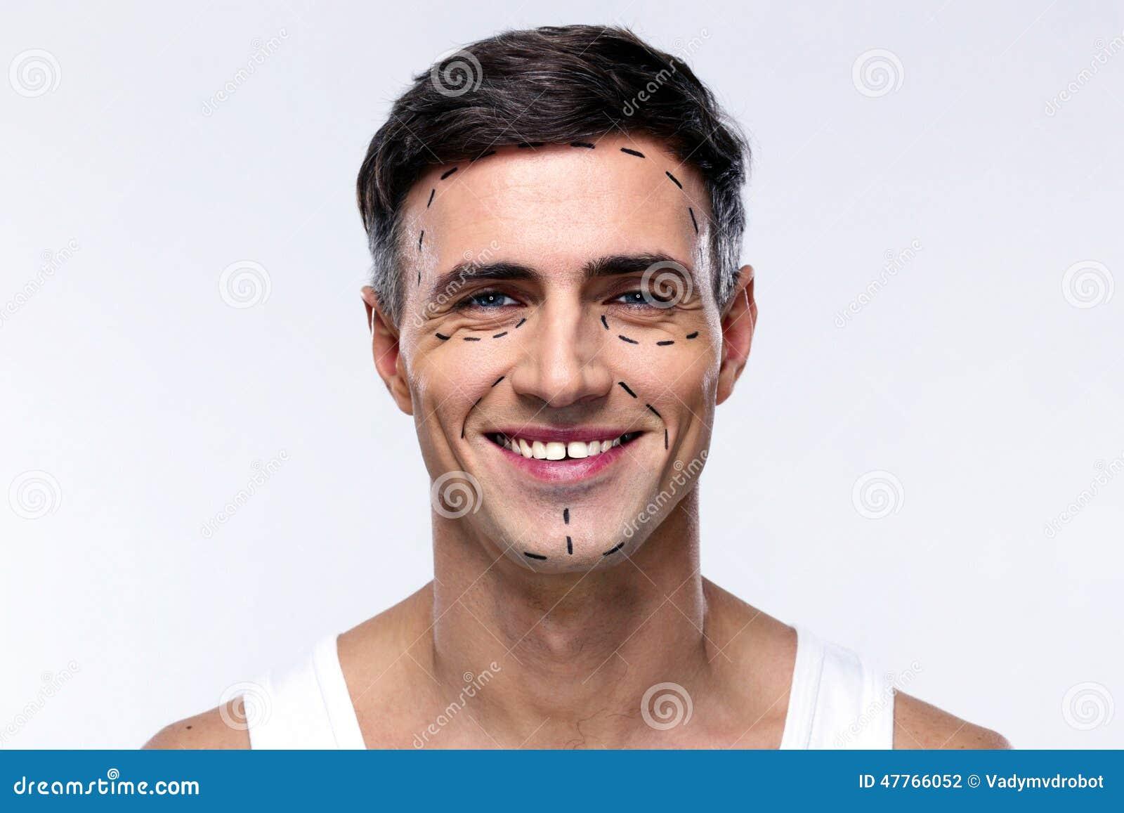 De mens merkte met lijnen voor plastische chirurgie