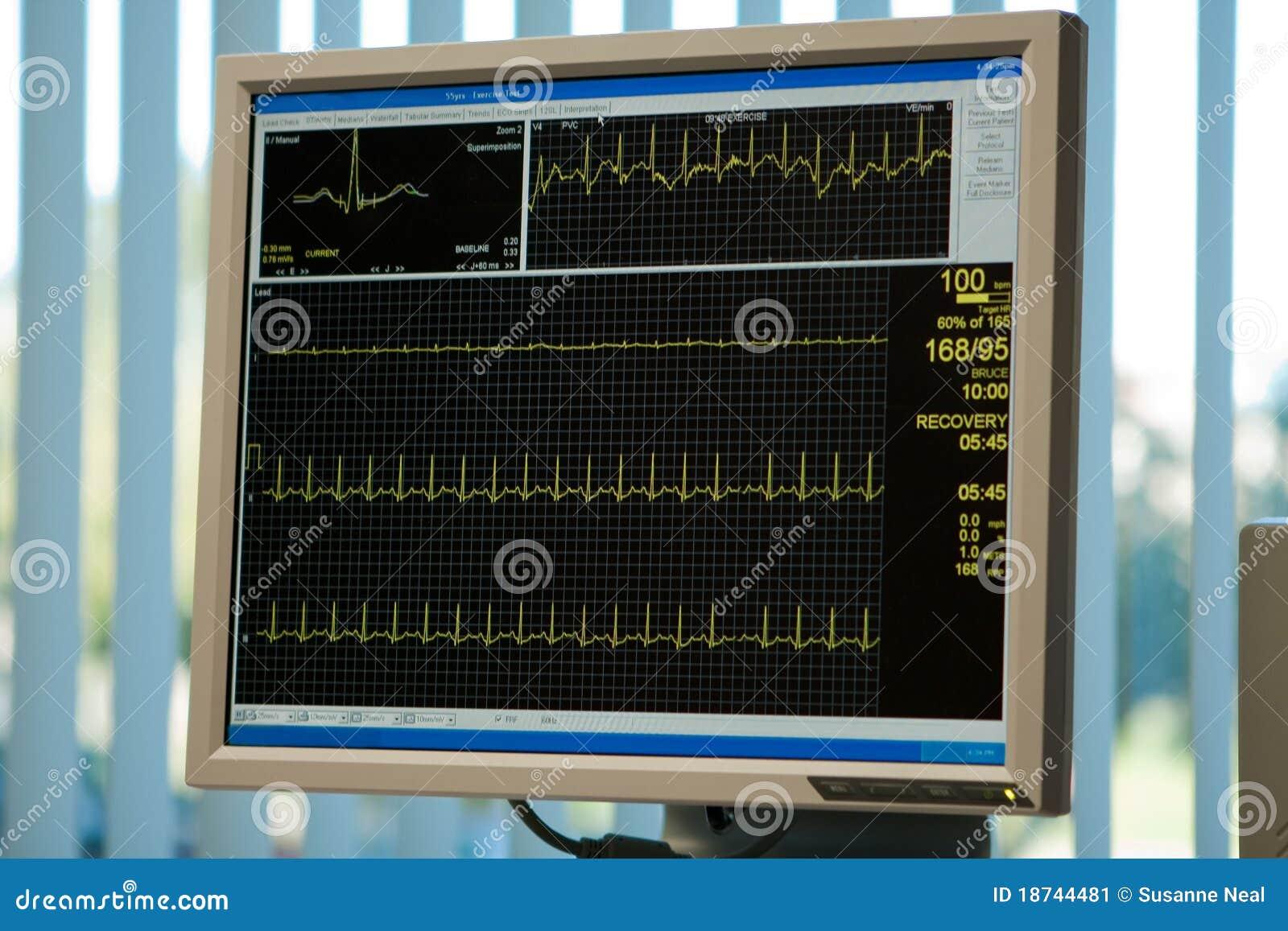 De monitor van het elektrocardiogram