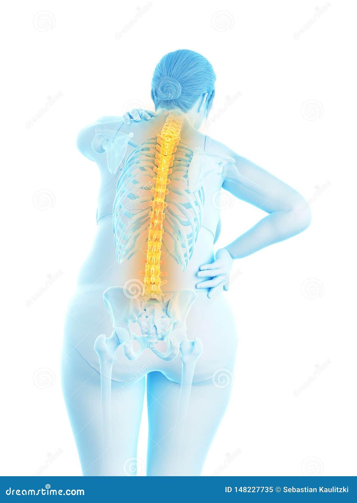 De pijnlijke rug van een te zware vrouw