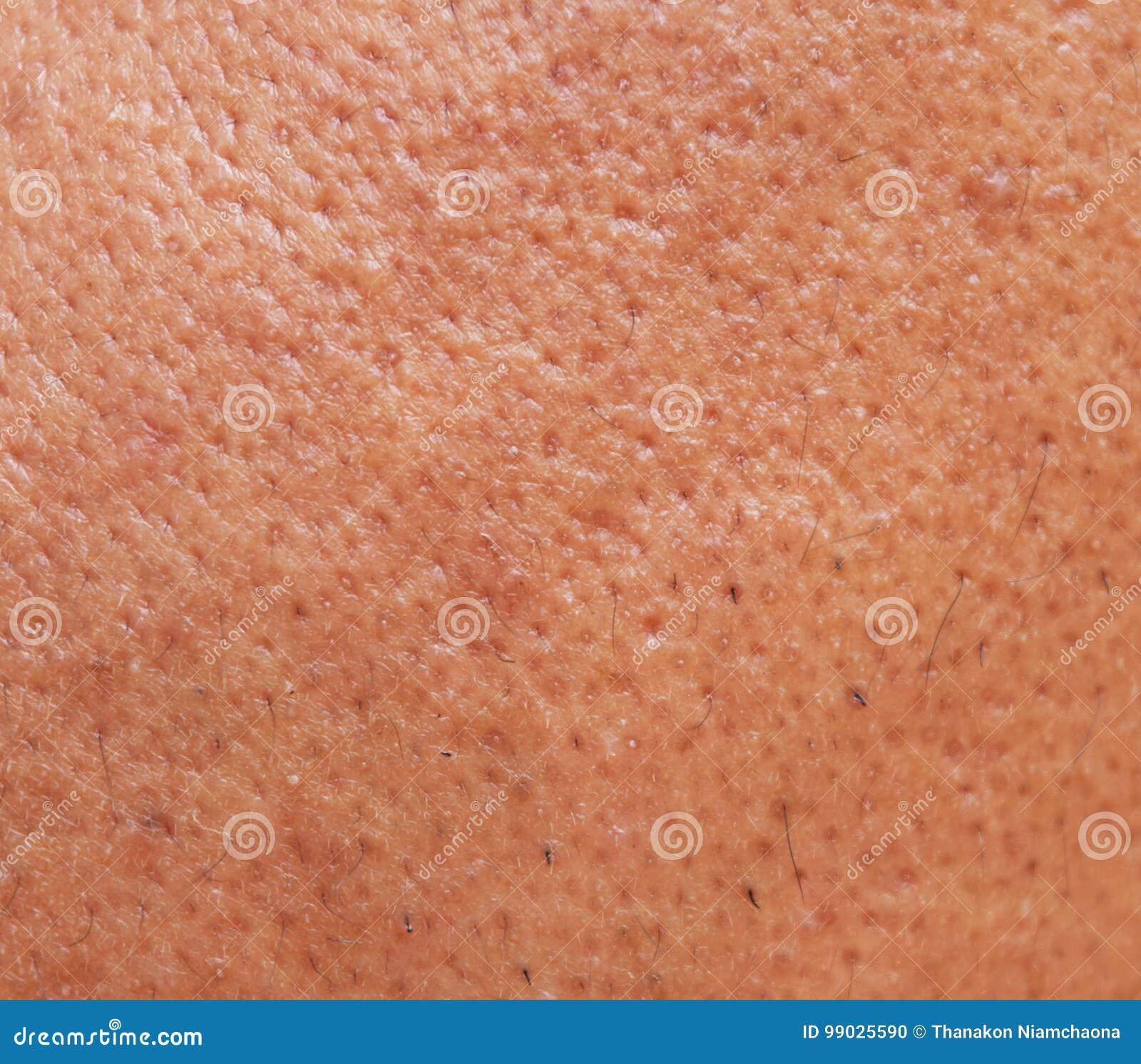 De poriën en olieachtig op het gezichtshuid van de oppervlakte jonge Aziatische mens nemen lange tijd geen zorg