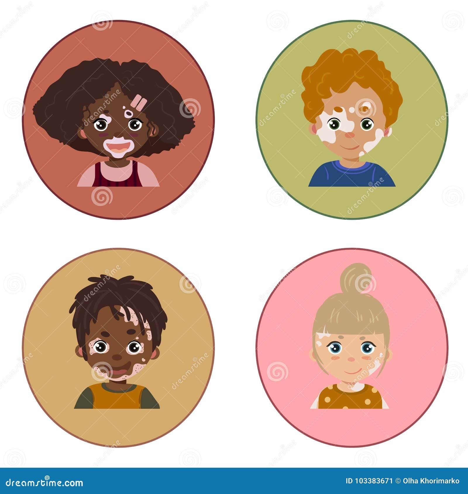 De portretten van de de huidziekte van kinderenvitiligo