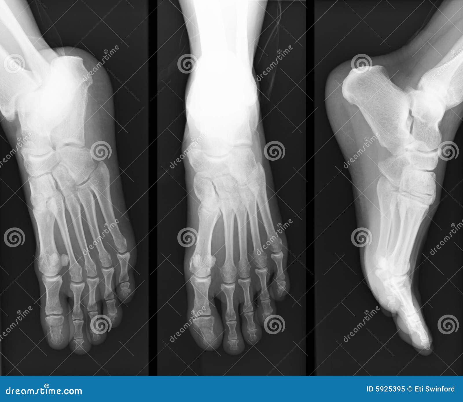 De röntgenstraal van de voet