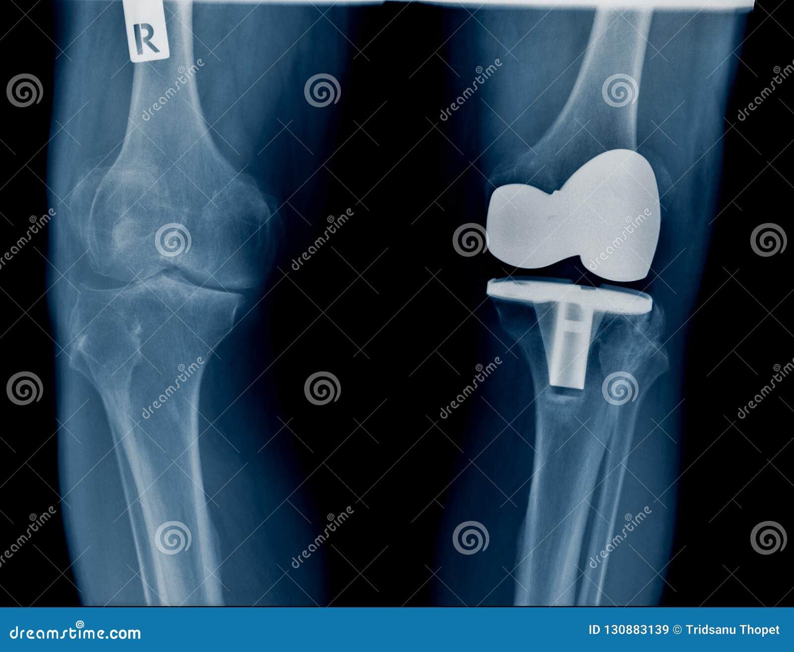 De röntgenstraal van de hoogtekwaliteit met knie gezamenlijke vervanging