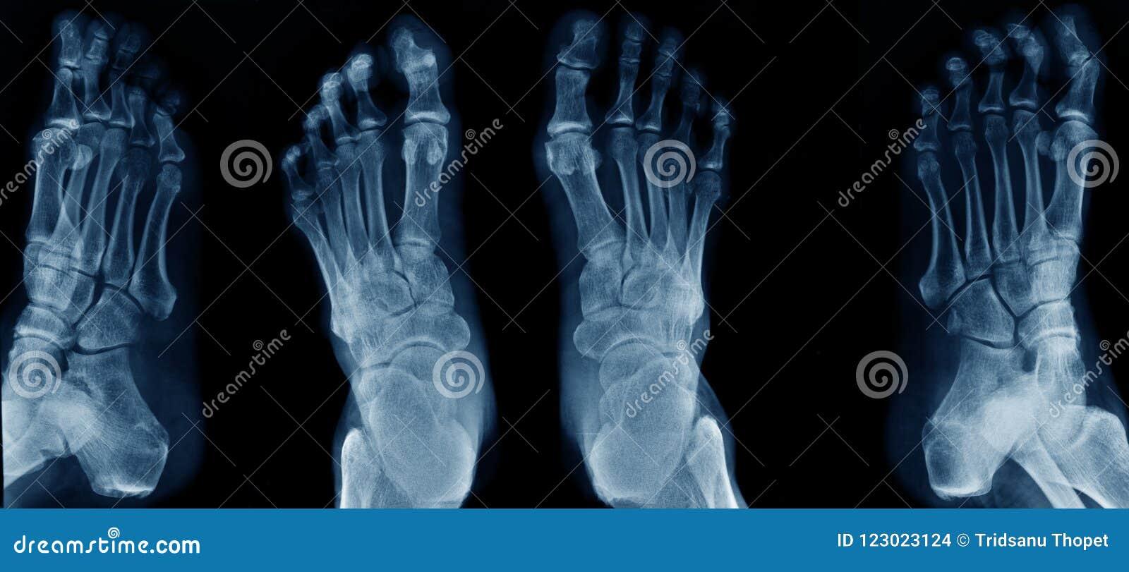 De röntgenstraal van de inzamelingsvoet