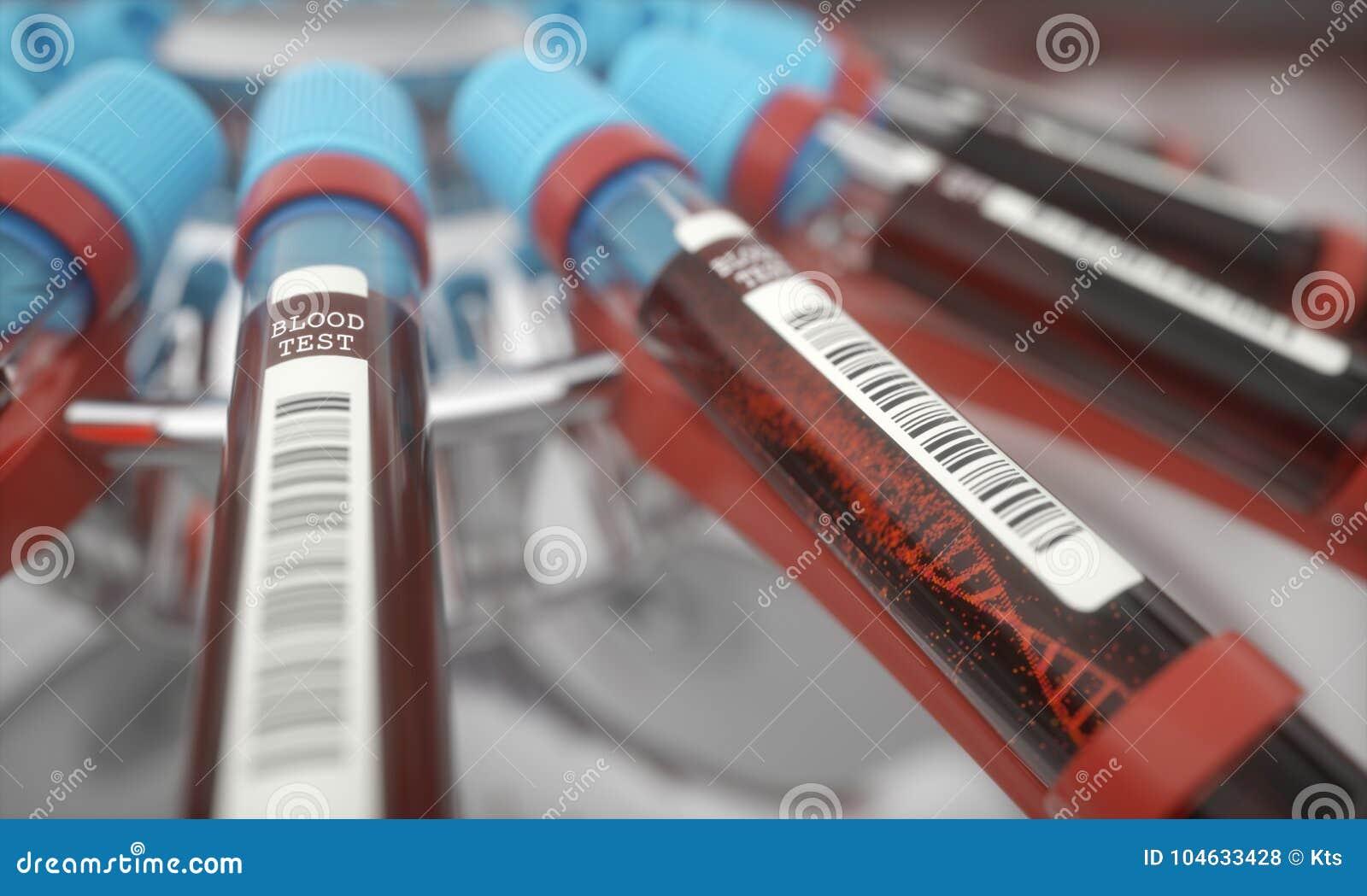 Download De reageerbuis van DNA stock foto. Afbeelding bestaande uit ziekte - 104633428