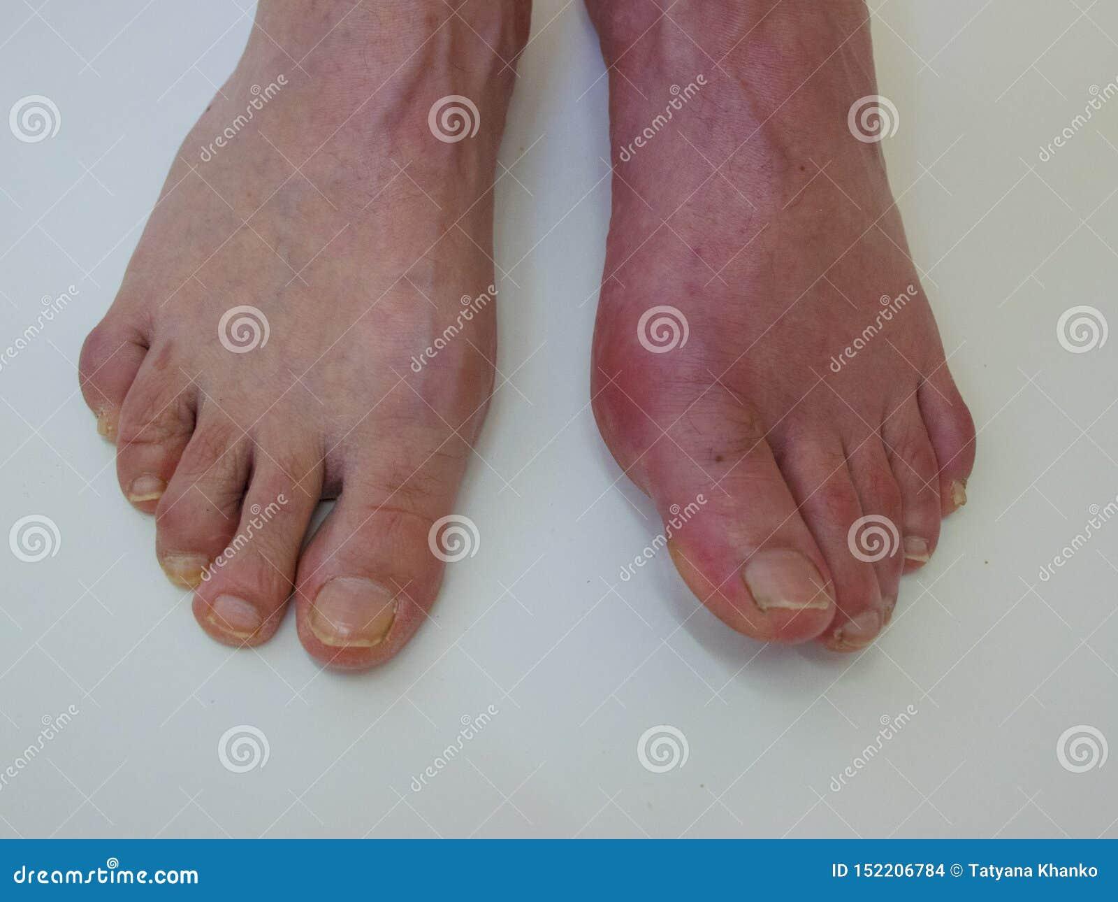 De Reumatiek en de jicht van de voetziekte Het rode been zwellen Pijn in de voet