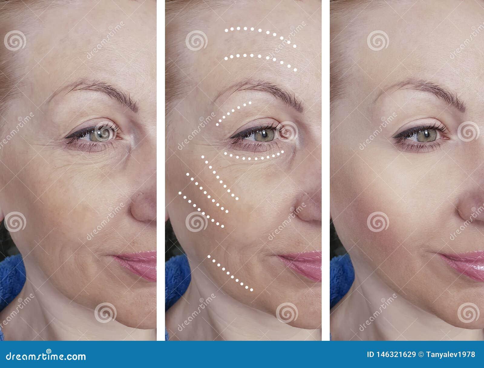 De rimpels van het vrouwengezicht voordien na het hydrateren verschil het hydrateren de correctieprocedures van behandelingsbiore