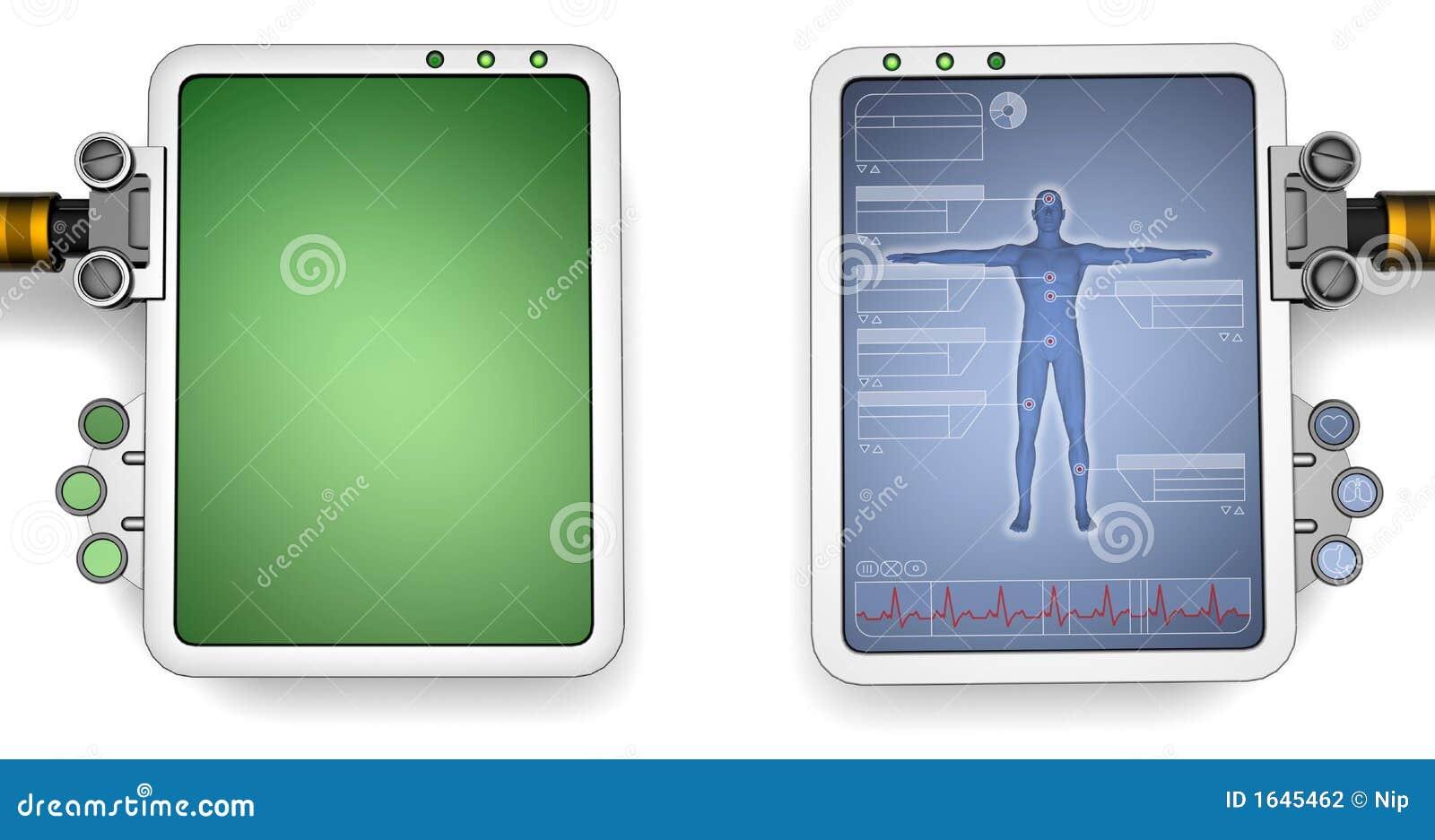 De schermen van de computer