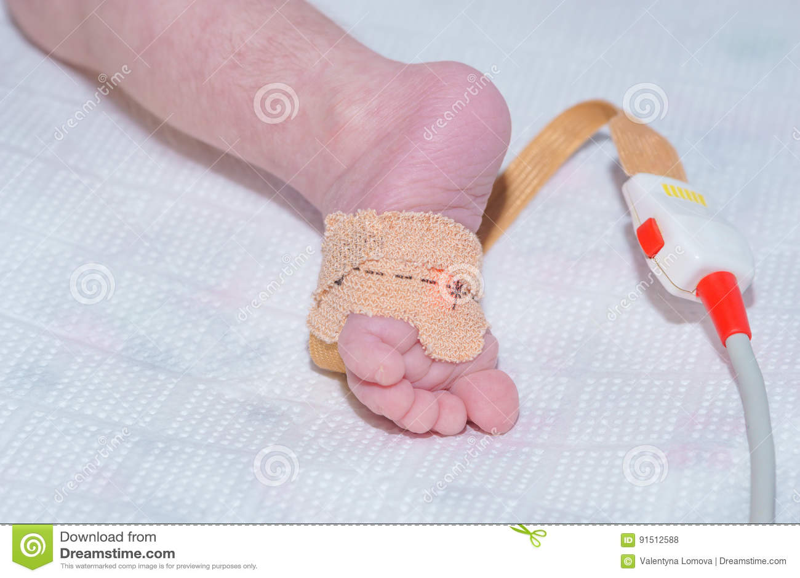 De sensor van impulsoximeter op de voet van pasgeboren baby bij het kinderen` s ziekenhuis