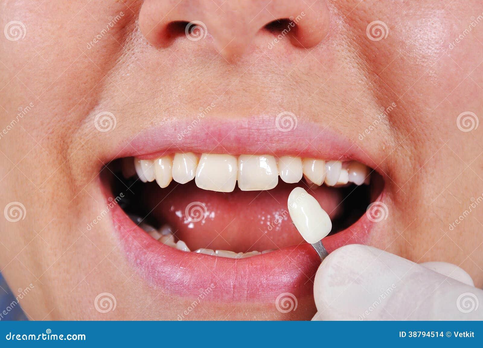 De tand van de schaduwbepaling