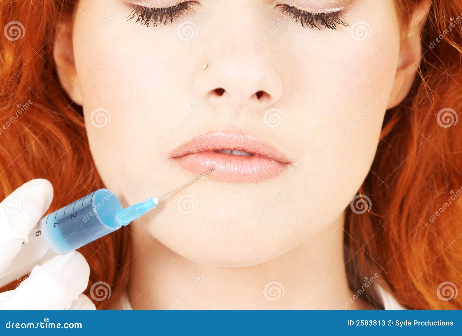 De uitbreiding van lippen