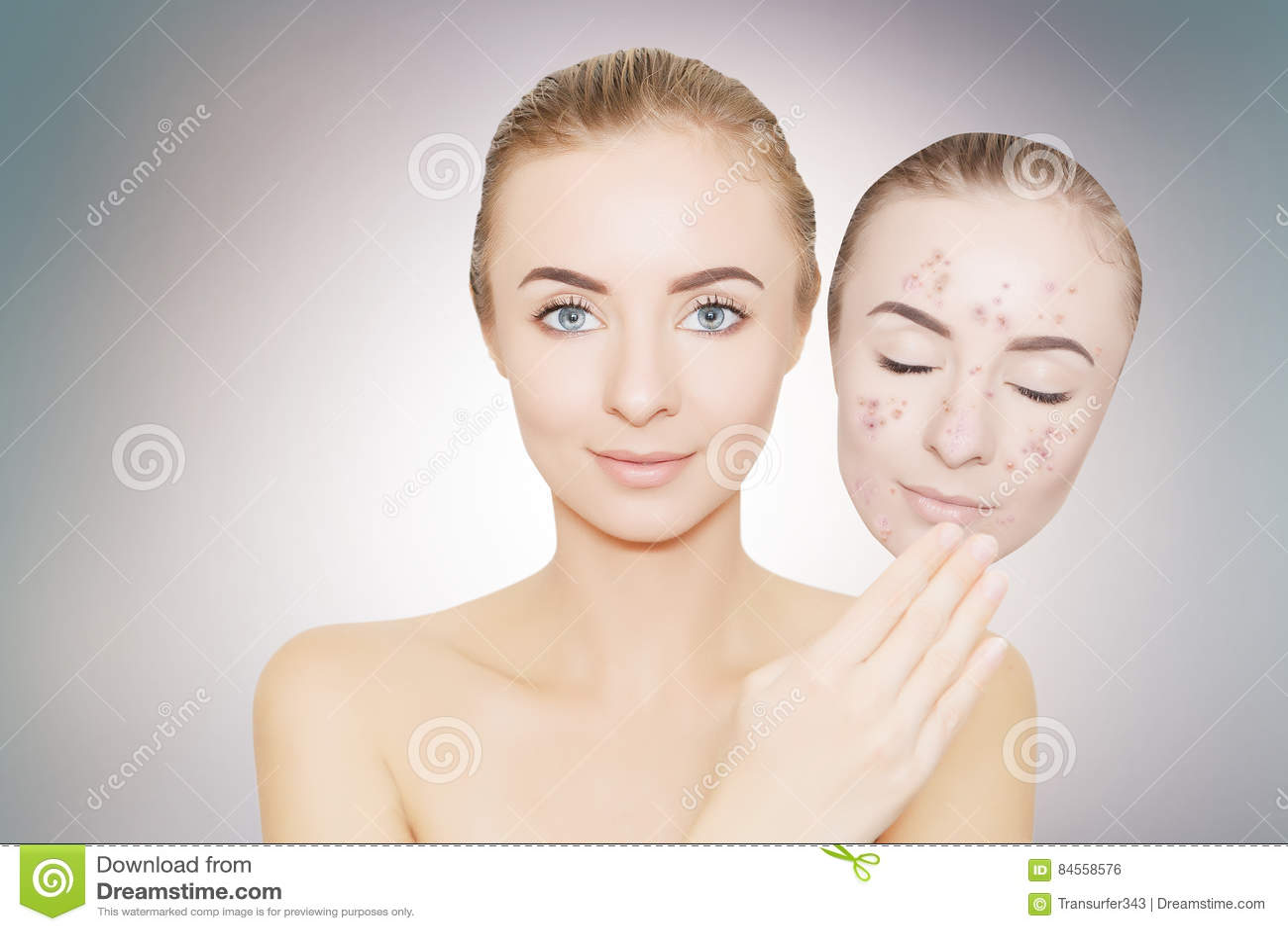 acne weg