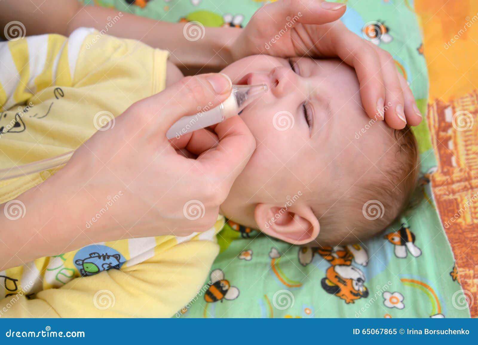 De vrouw schrapt slijm van een neus aan de zieke schreeuwende baby met een neusaspirator