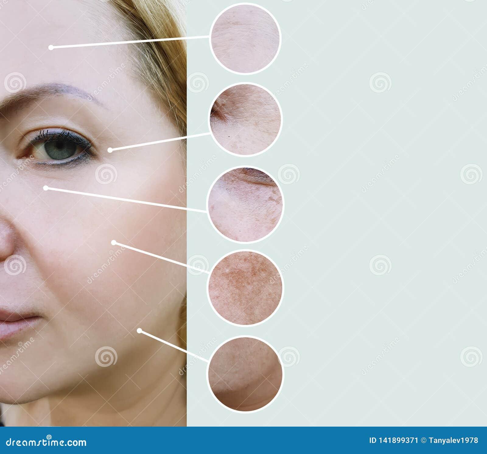 De vrouwelijke rimpels before and after verschil rijpen de collage van de therapieprocedures van de regeneratieschoonheidsspecial