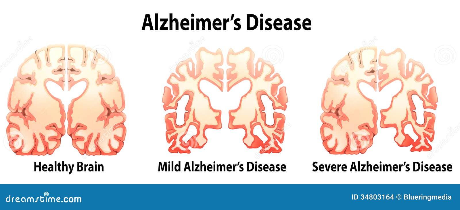 De Ziekte Van Alzheimer Stock Afbeeldingen Beeld 34803164
