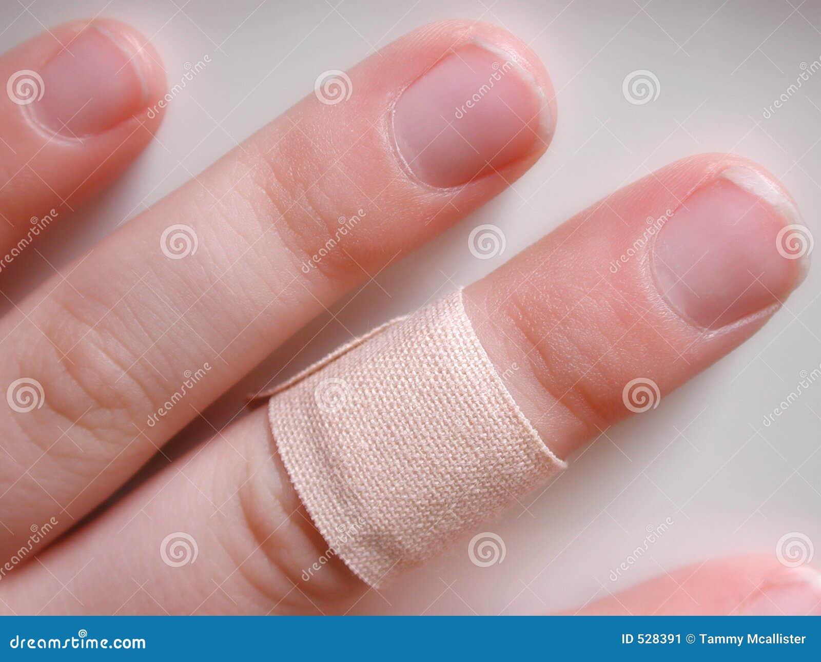 Dedo de Childs com atadura