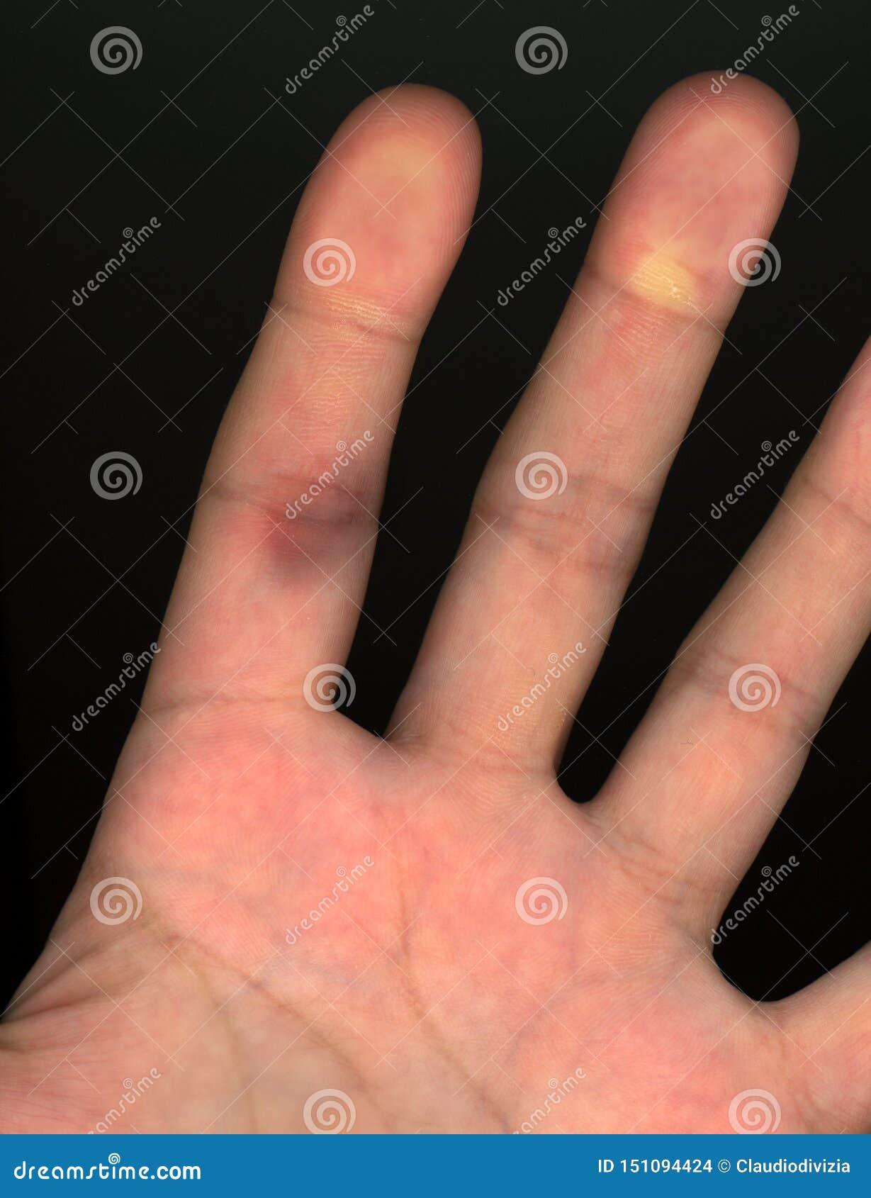 Do dedo cura na vaso o sanguíneo estalou