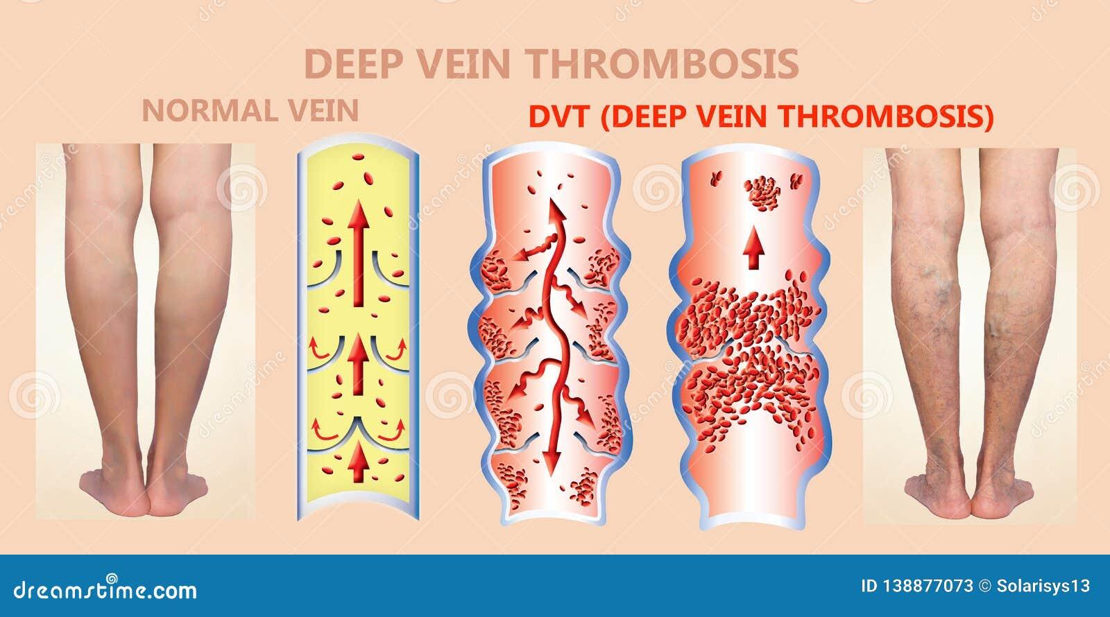 thrombo varicose