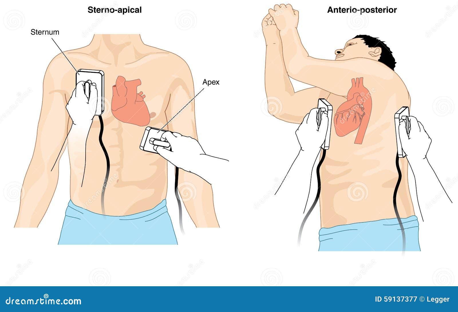defibrillator cardioversion stock vector illustration of ekg vector change ekg vector pdf