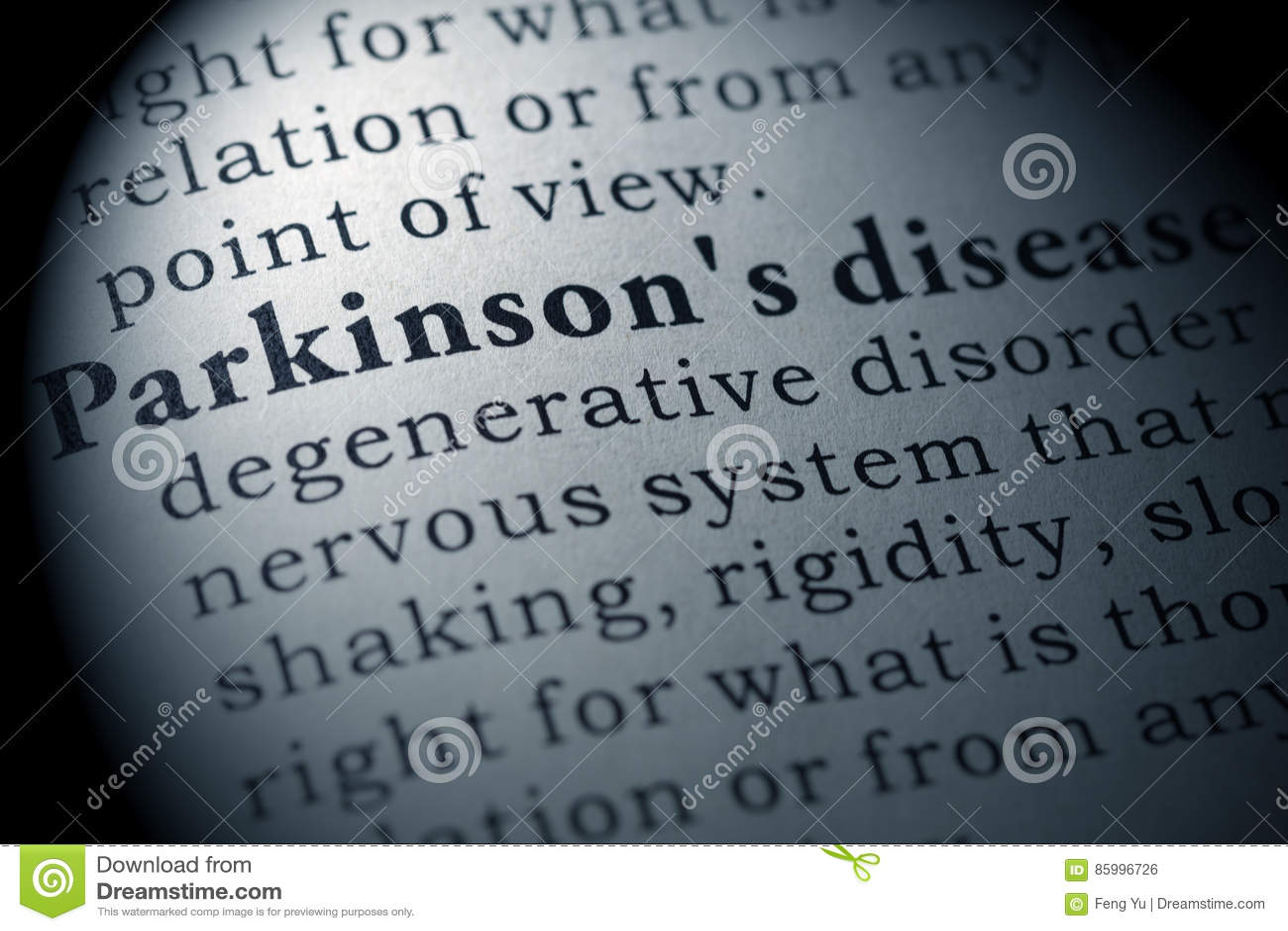 Definicja Parkinson ` s choroba