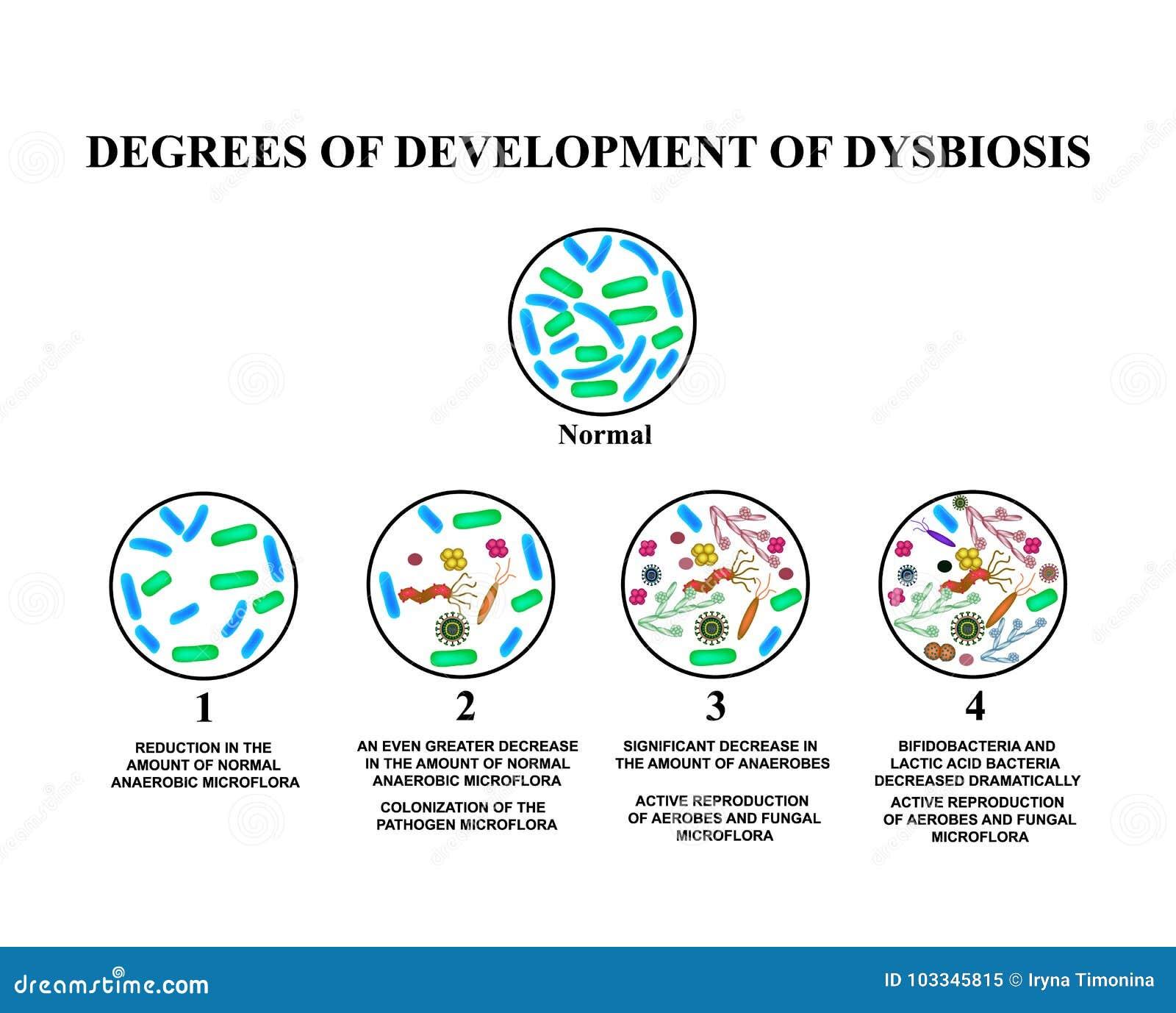 4 degrees of development of dysbiosis dysbacteriosis of the 4 degrees of development of dysbiosis dysbacteriosis of the intestine large intestine dysbiosis colon bacteria fungi viruses ccuart Choice Image