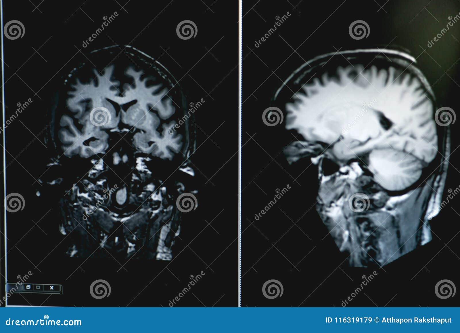 Demens på MRI-filmen hjärndemens