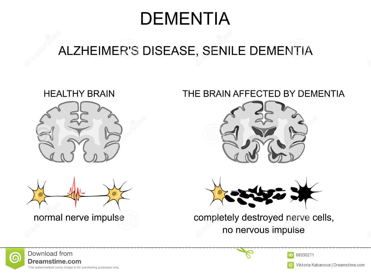 uploading your memory in the case of alzheimers disease Care with alzheimer's disease and other forms of dementia, and (2)  forever changes a person's memory behavior and ability to care for  people are unique and bring to the caregiving situation different perspectives.