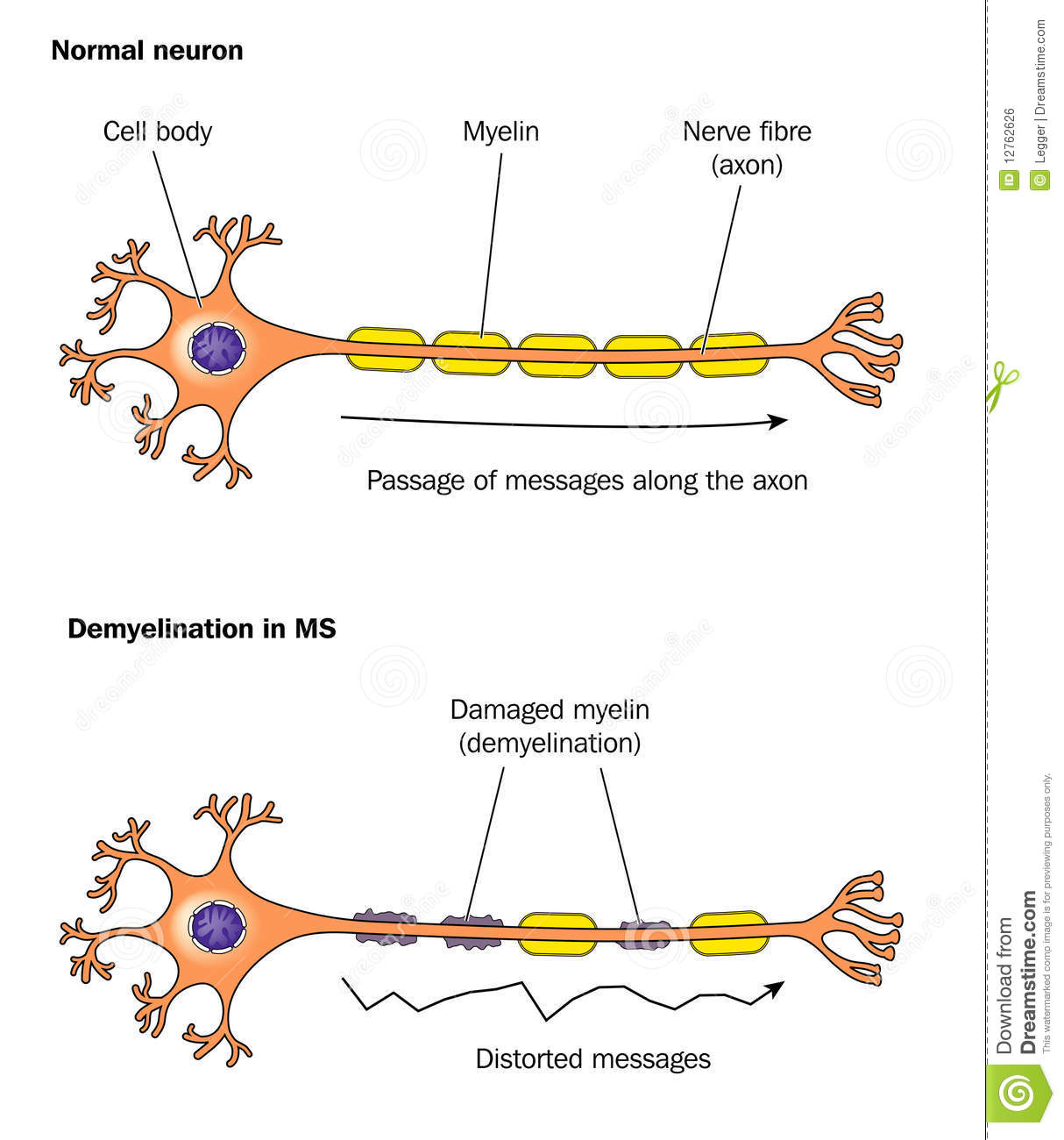the effects of social isolation in myelin production This paper reveals that the stress of social isolation disrupts the sequence in which the myelin-making cells, the oligodendrocytes, are formed  that myelin production went back to normal.