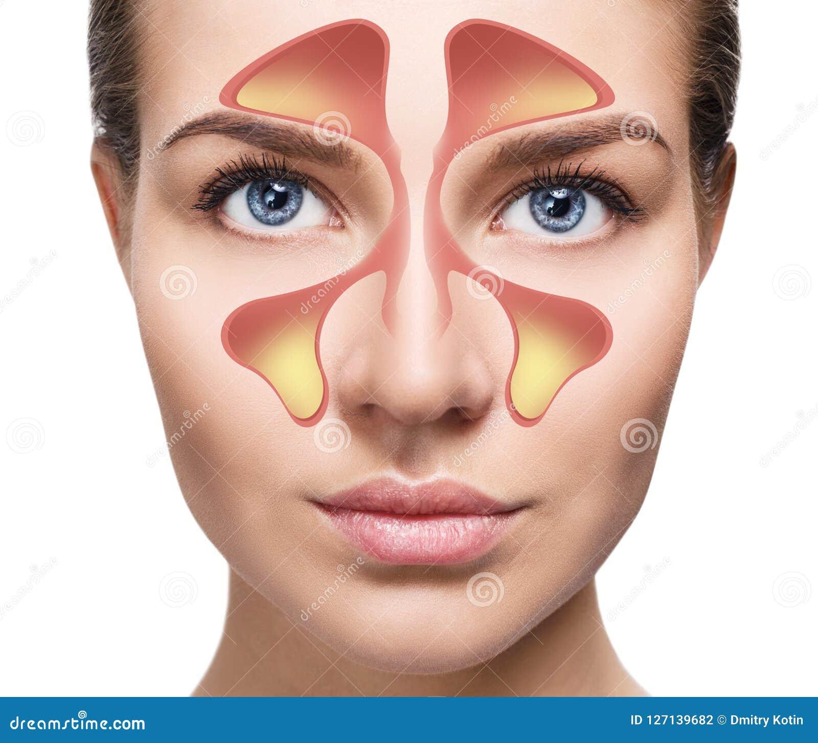Den kvinnliga framsidan visar nasal bihåla med förkylning över vit bakgrund