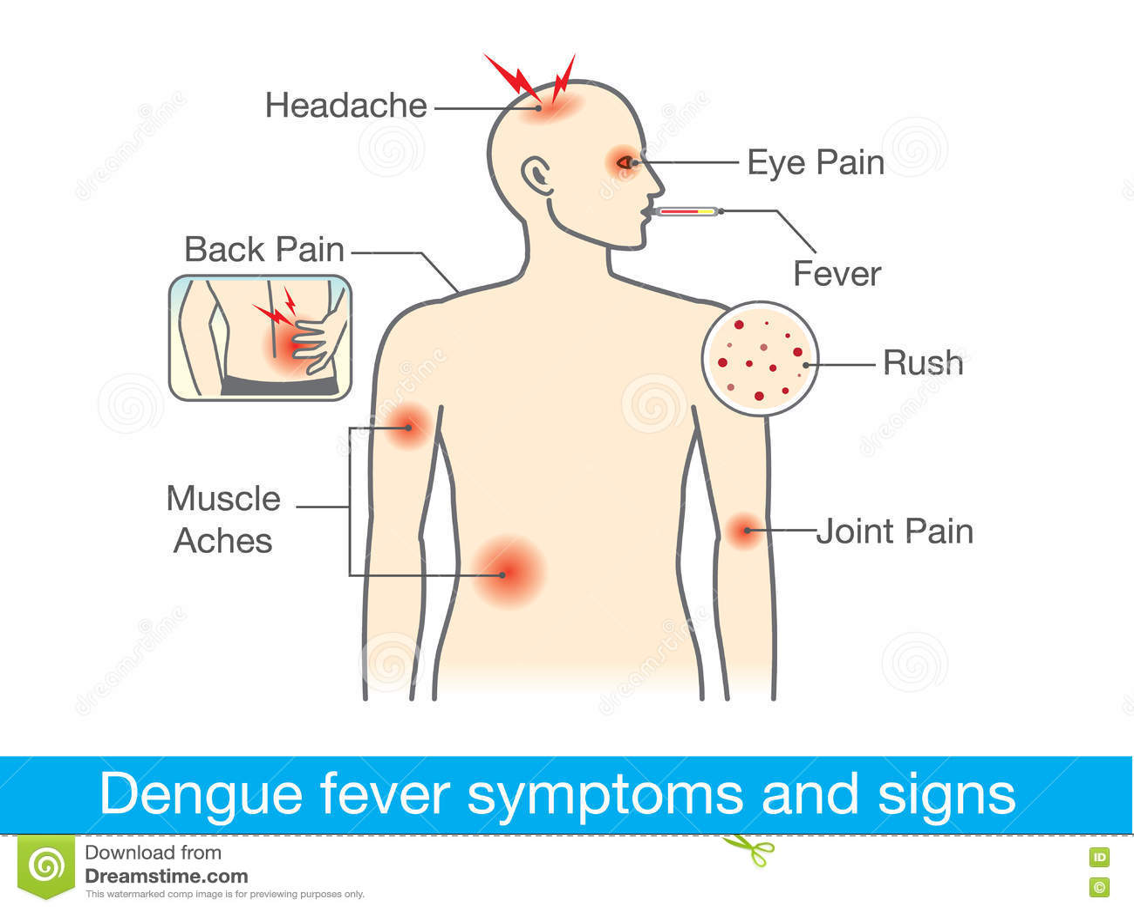 dengue fever symptoms and signs stock vector illustration of adult rh  dreamstime com diagram of dengue