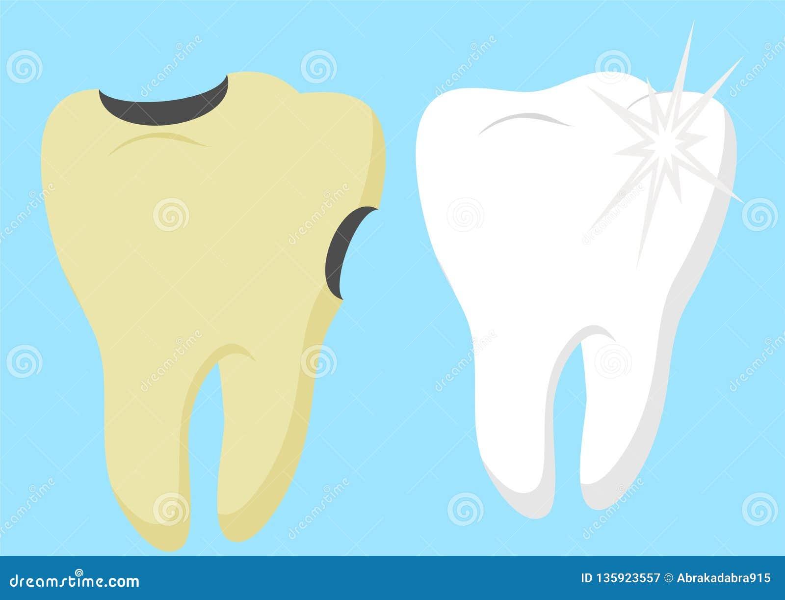 Dent saine de bande dessinée et dent délabrée avec Infographics de soins dentaires et d hygiène Bon et mauvais pour vos dents Vec