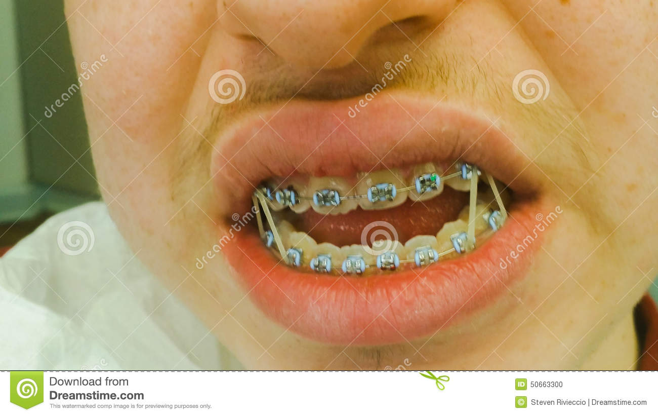 Dental Braces With Rubber Bands Stock Photo Image Of Braces