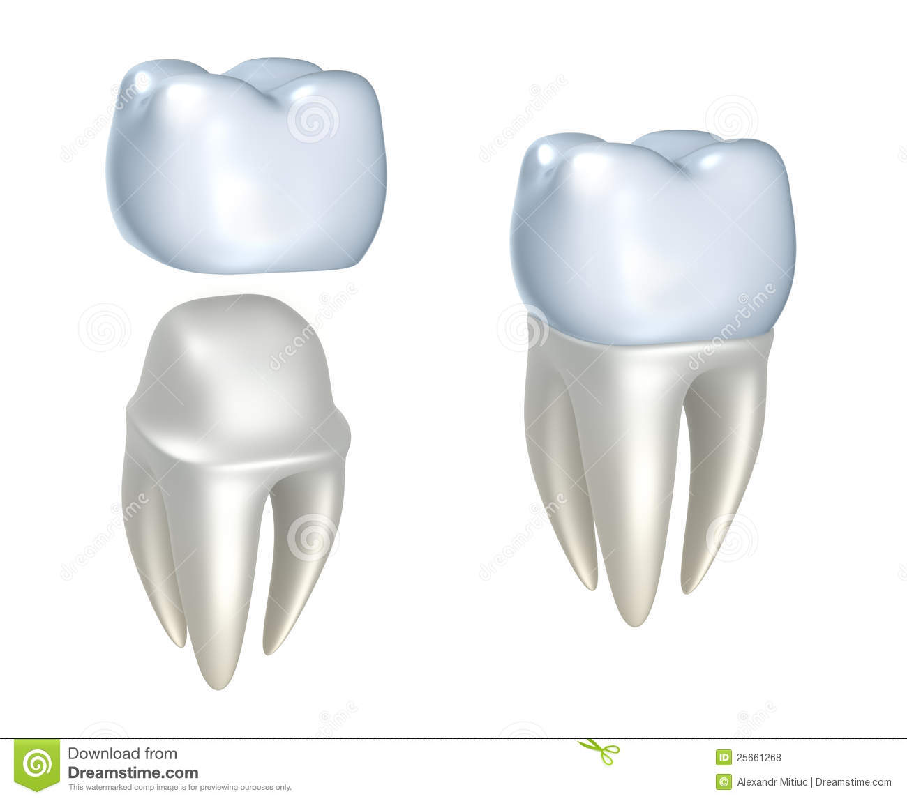 Dental Crowns And Tooth Royalty Free Stock Photos Image
