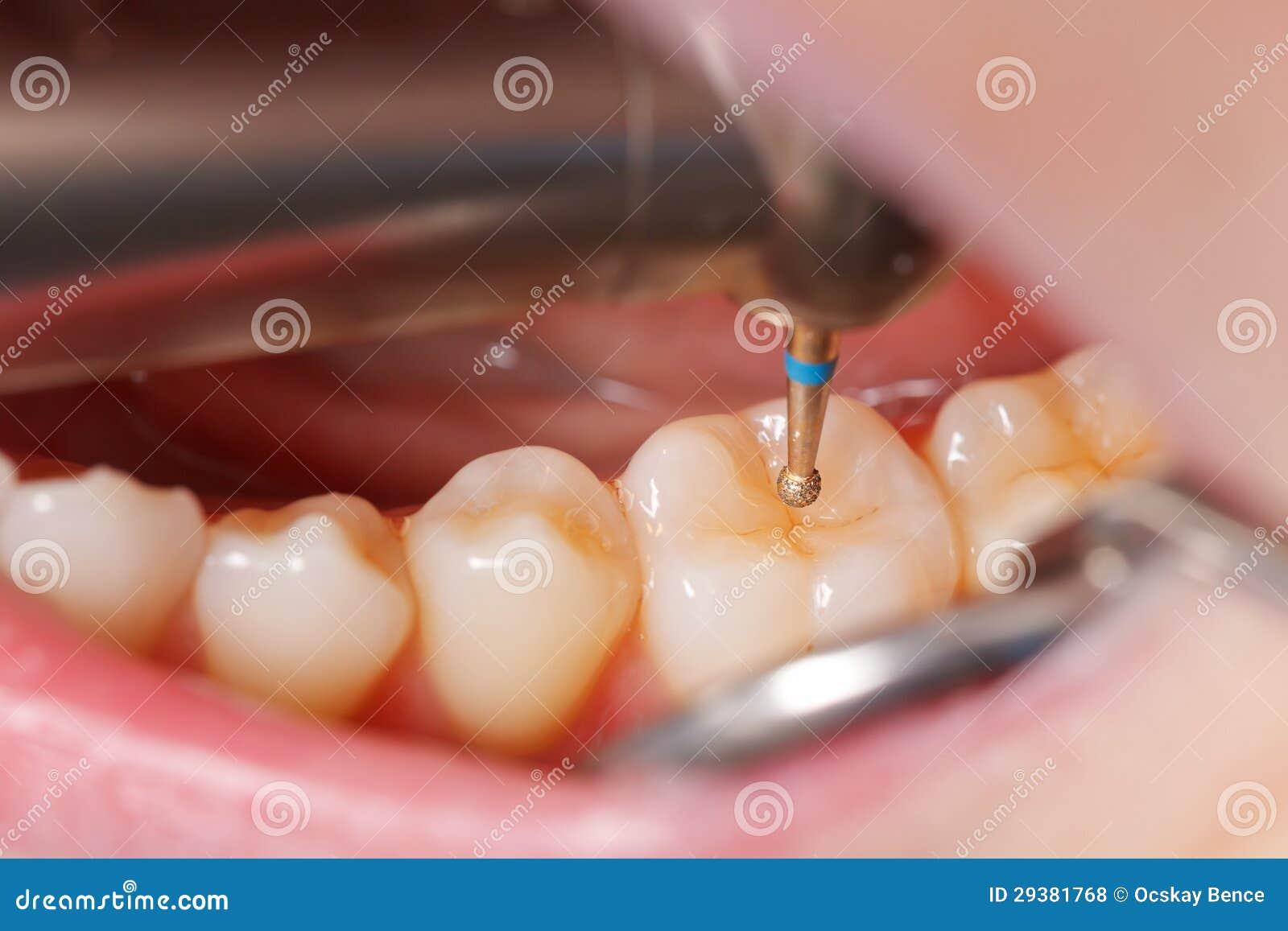 Dental Drill Tooth Dental Drilling Royalt...