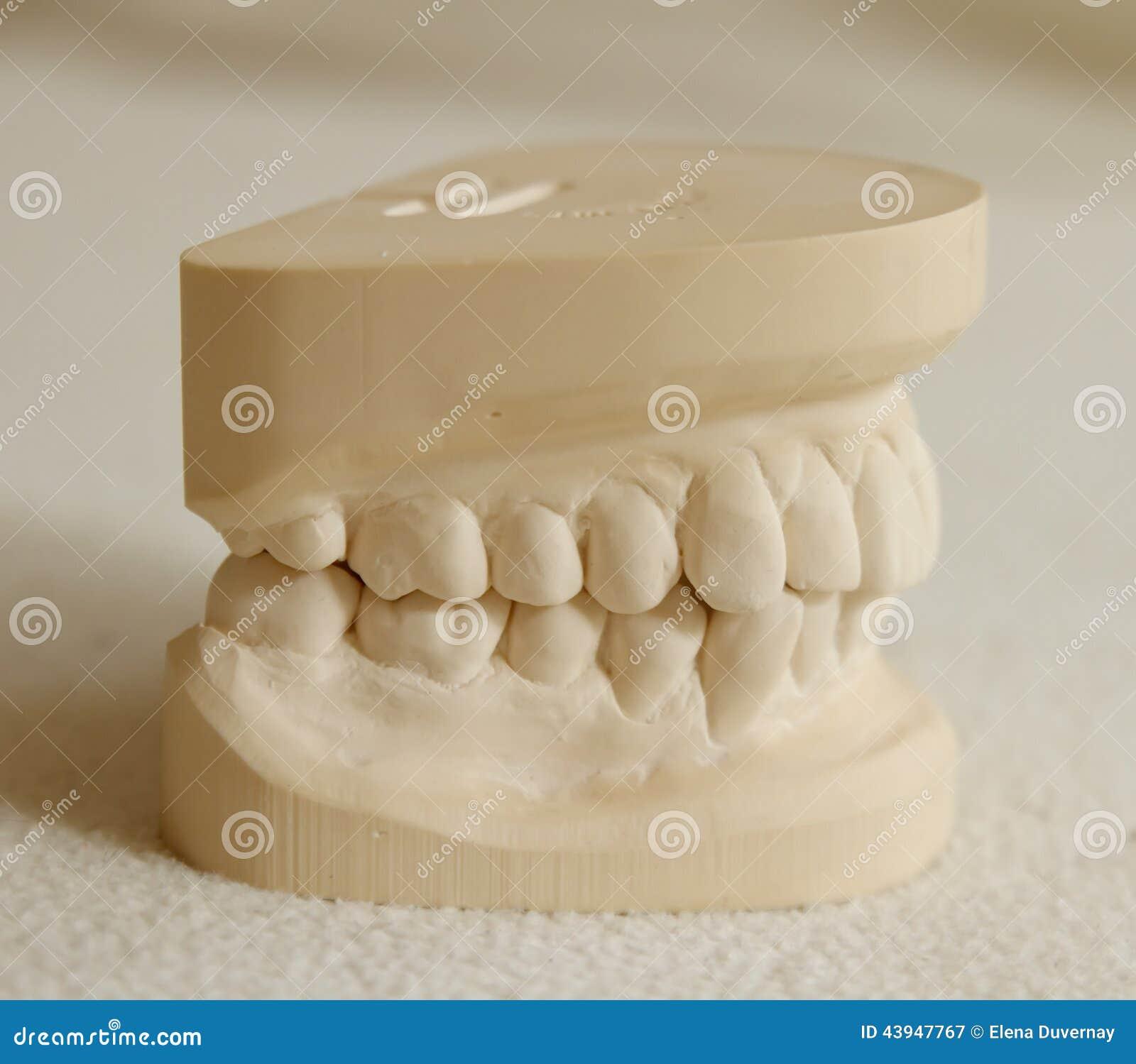 Dental Gypsum Plaster : Dental gypsum model mould of teeth stock photo image