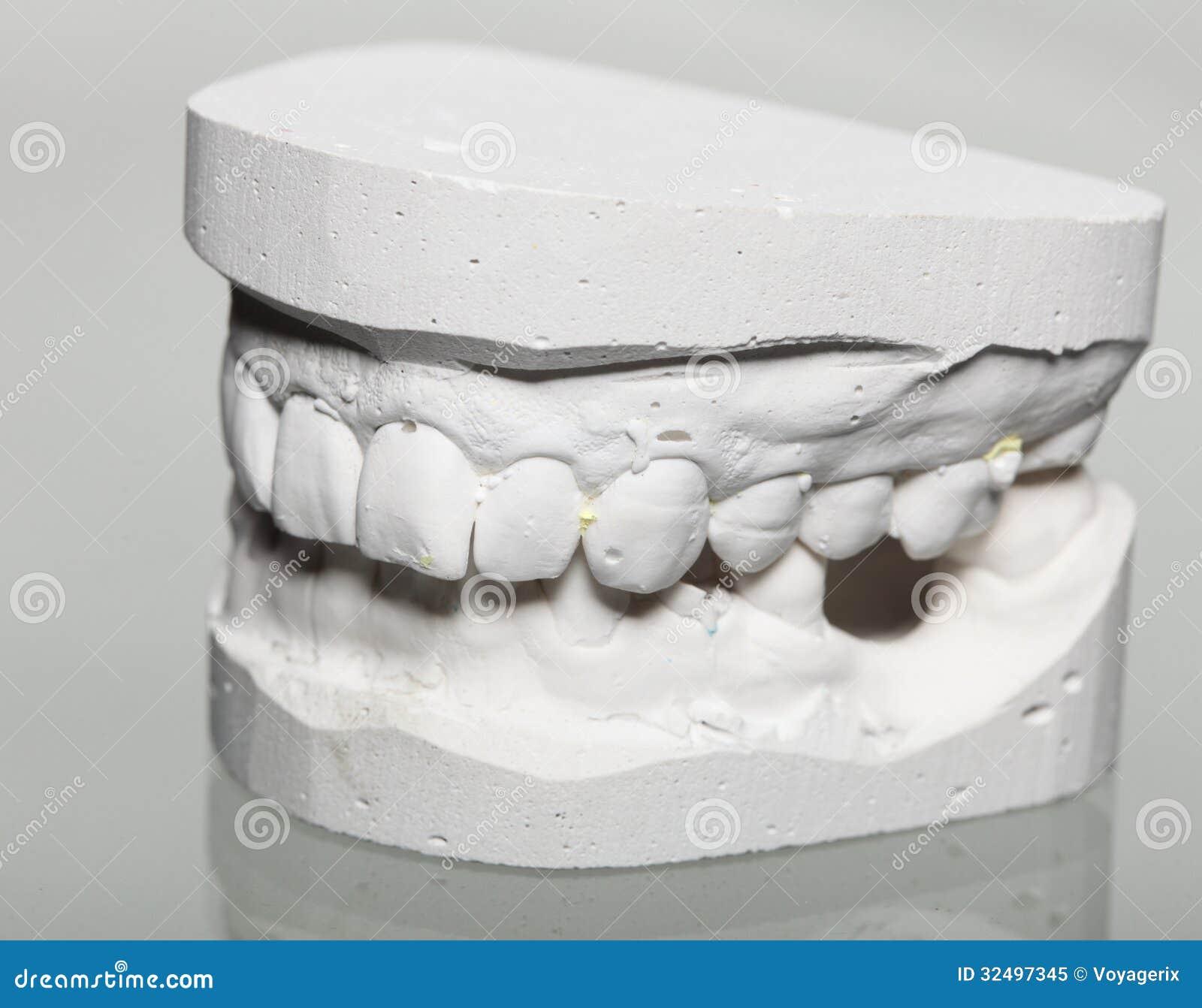 Tire Plaster Castings : Dental gypsum model mould of teeth in plaster stock image