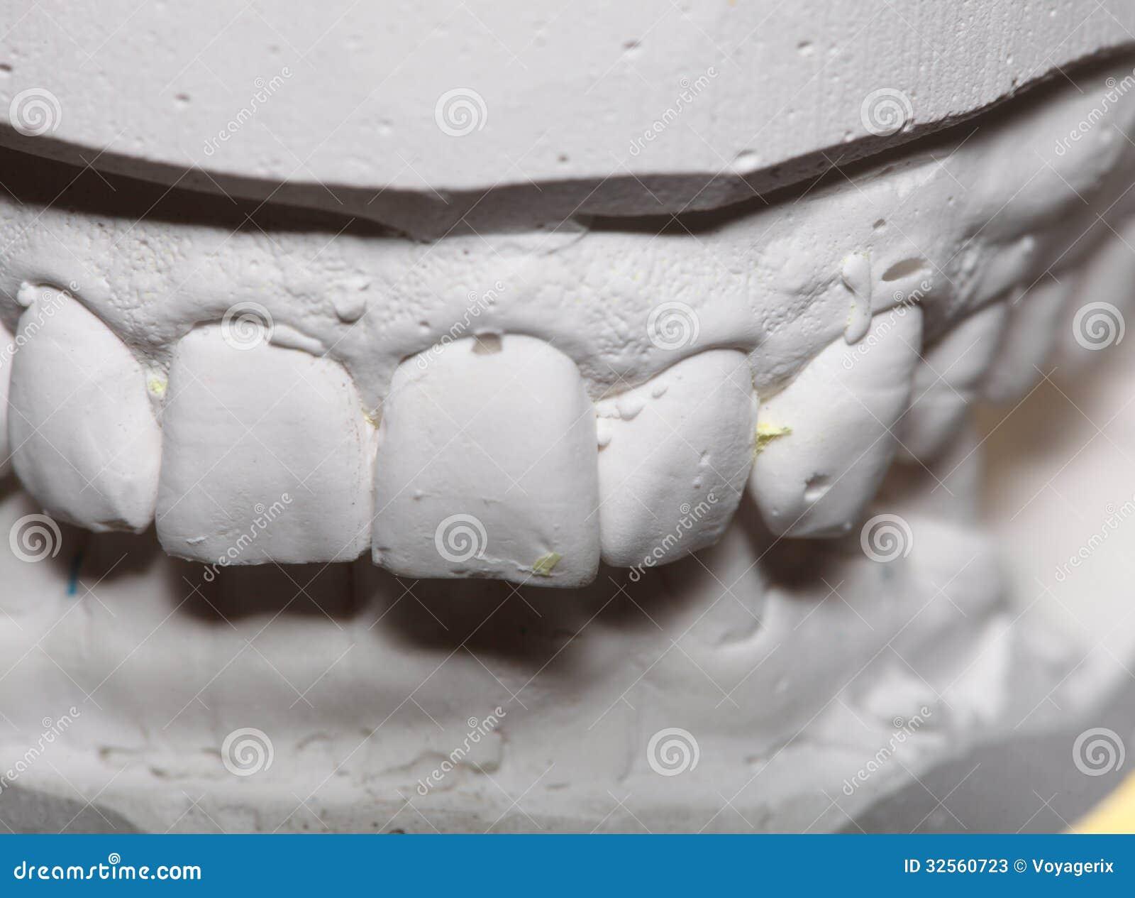 Dental Gypsum Plaster : Dental gypsum model mould of teeth in plaster stock photos