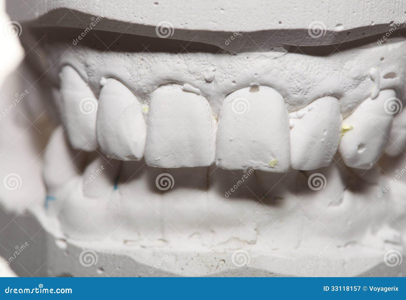 Dental Gypsum Plaster : Dental gypsum model mould of teeth in plaster stock image