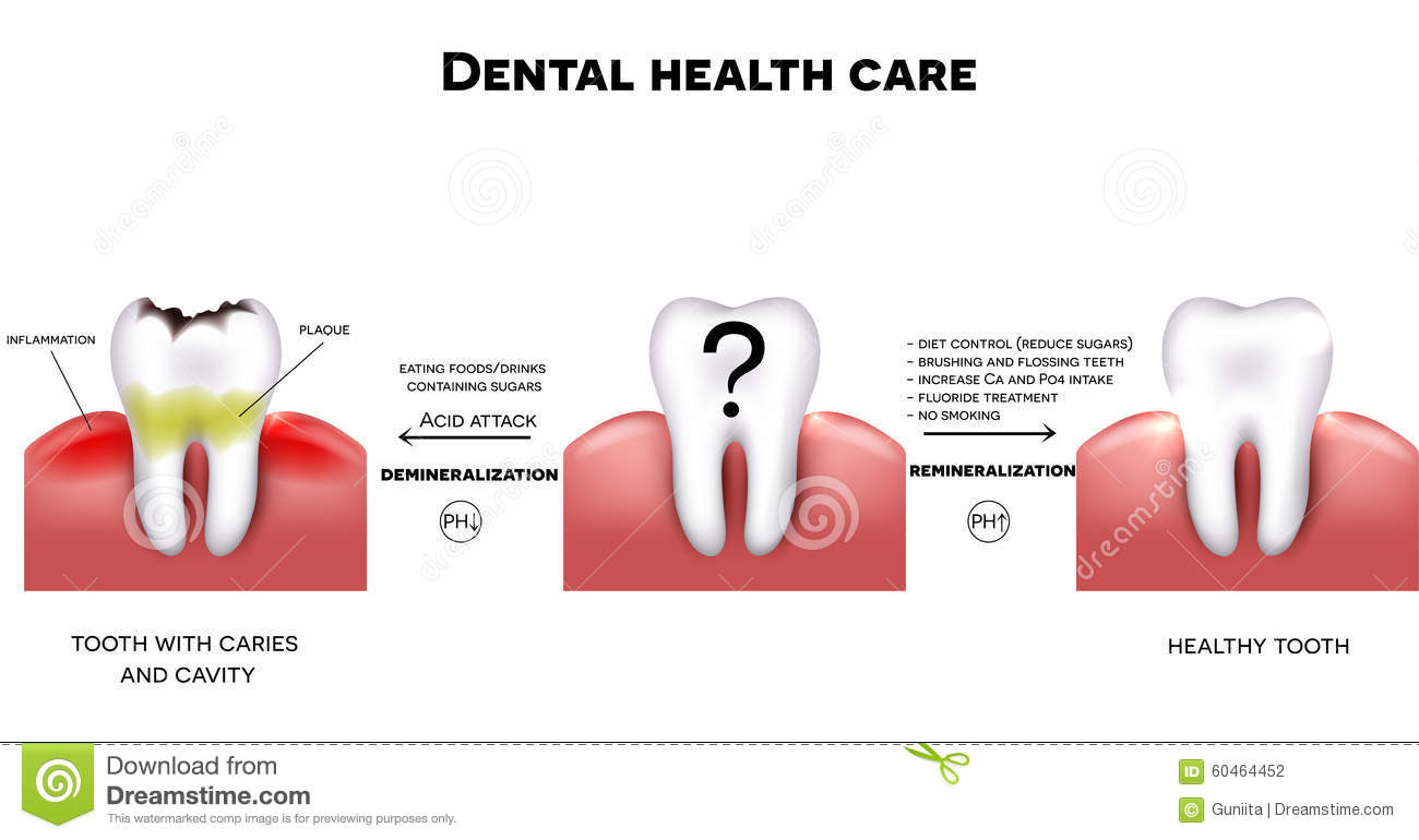dental-health-care-tips-how-to-maintain-healthy-tooth-diet-sugars-brushing-fluoride-treatment-etc-tooth-caries-60464452.jpg