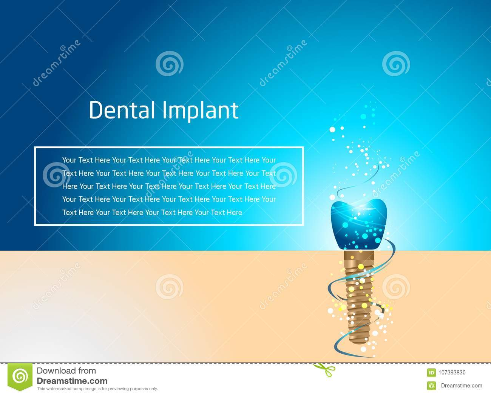 Download Dental Implant Billboard Design Stock Vector