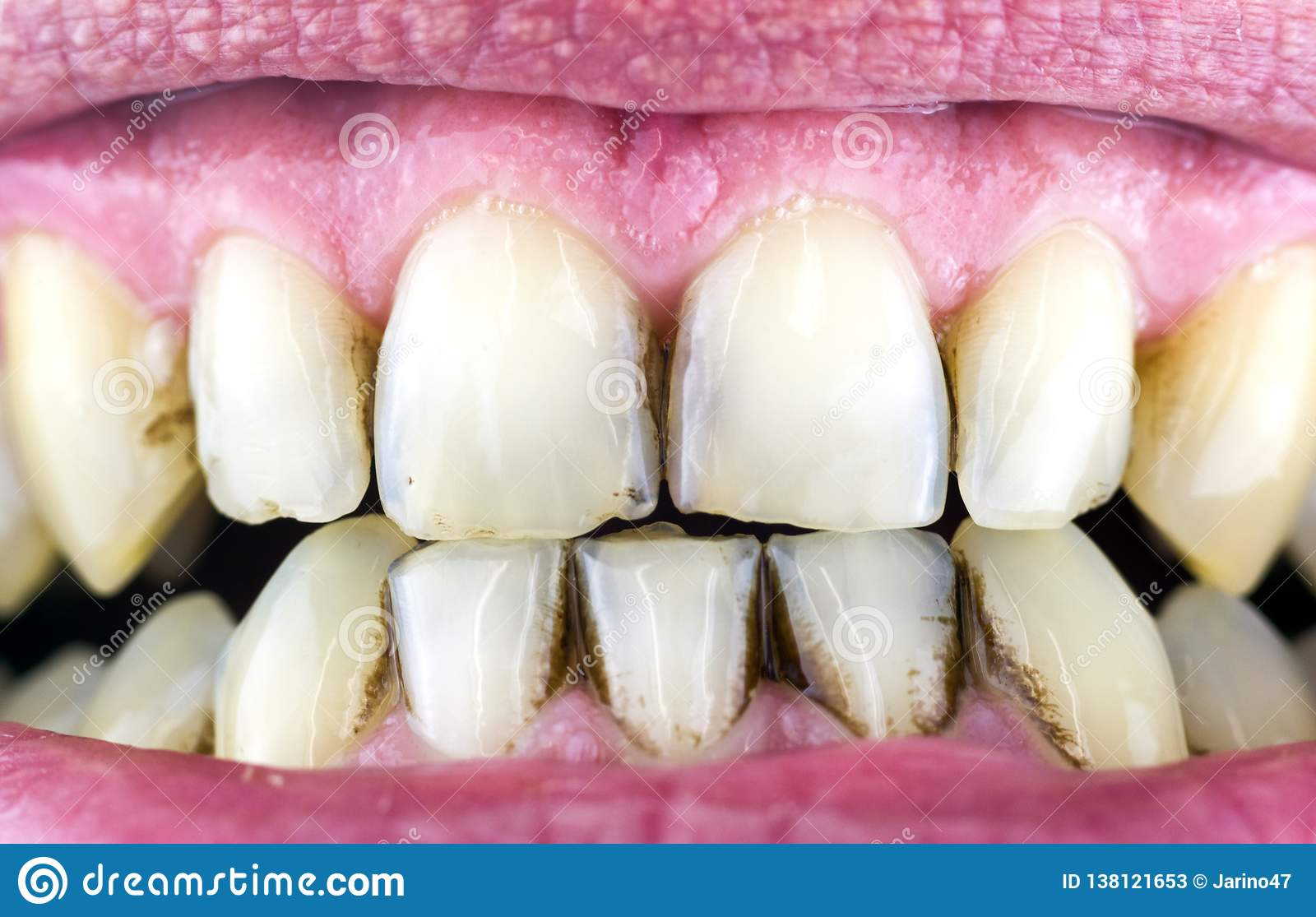 Dental plaque on teeth stock image  Image of treatment